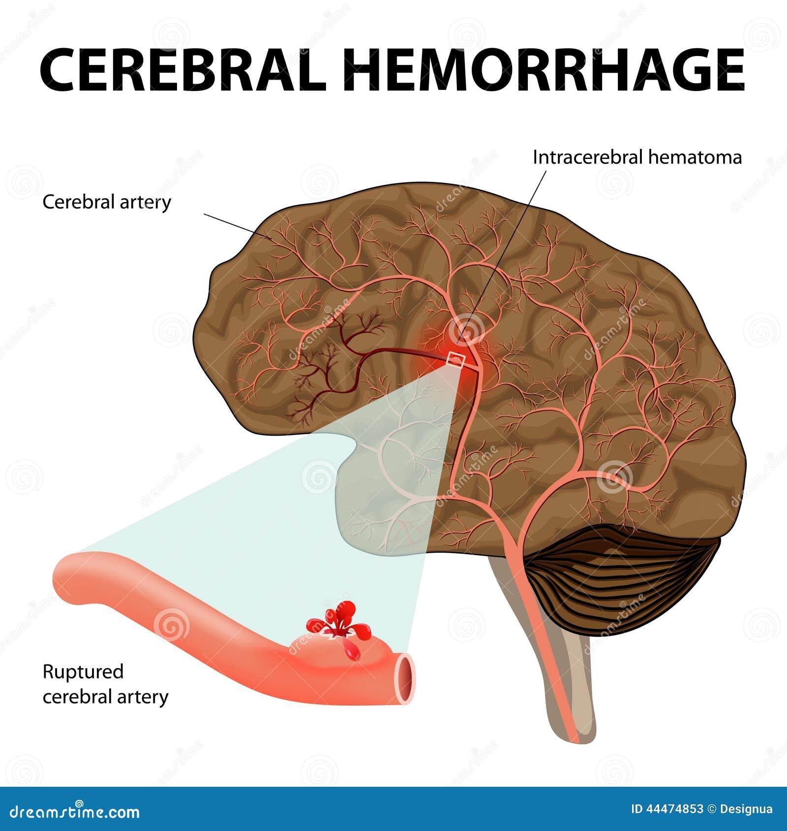 Cerebral hemorrhage stock vector. Illustration of anatomy - 44474853