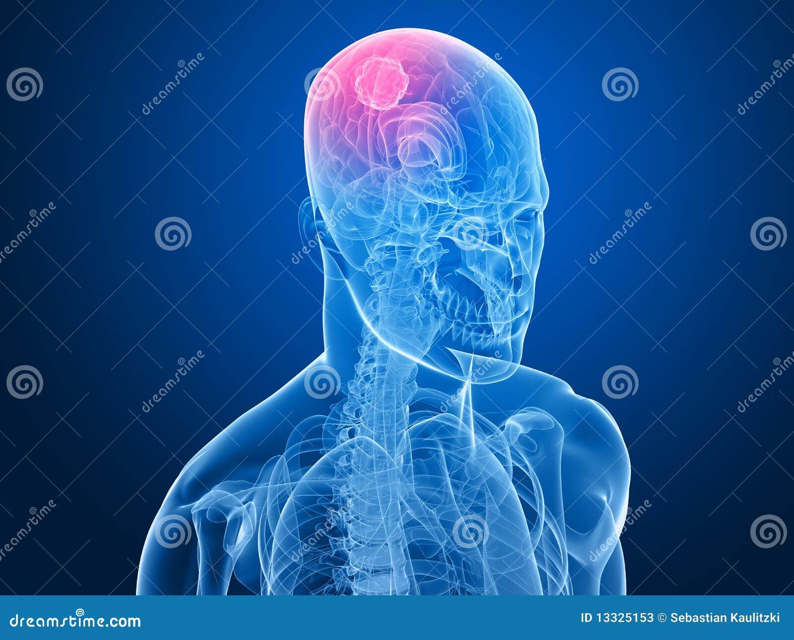 Cerebralny bolak