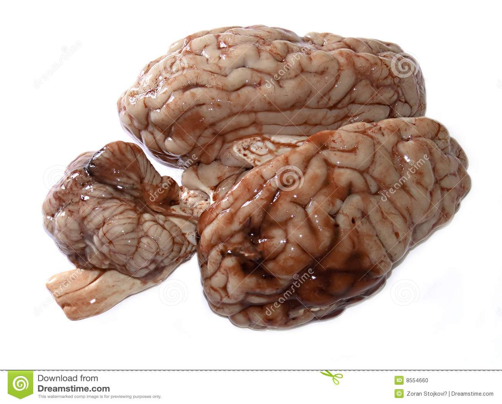 Фото мозг старого человека 3