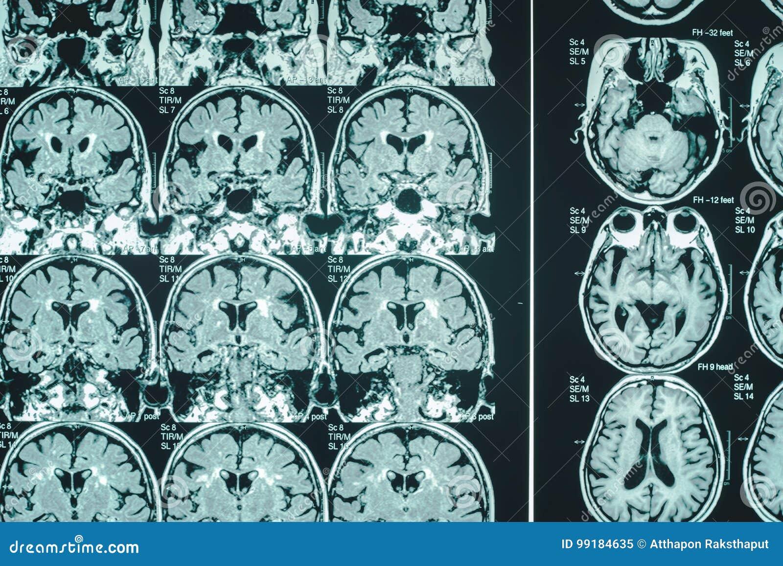 Cervello di demenza sul RMI