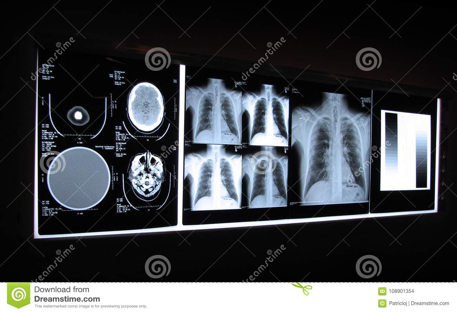 Cervello ed esame radiografico del torace su un bordo leggero
