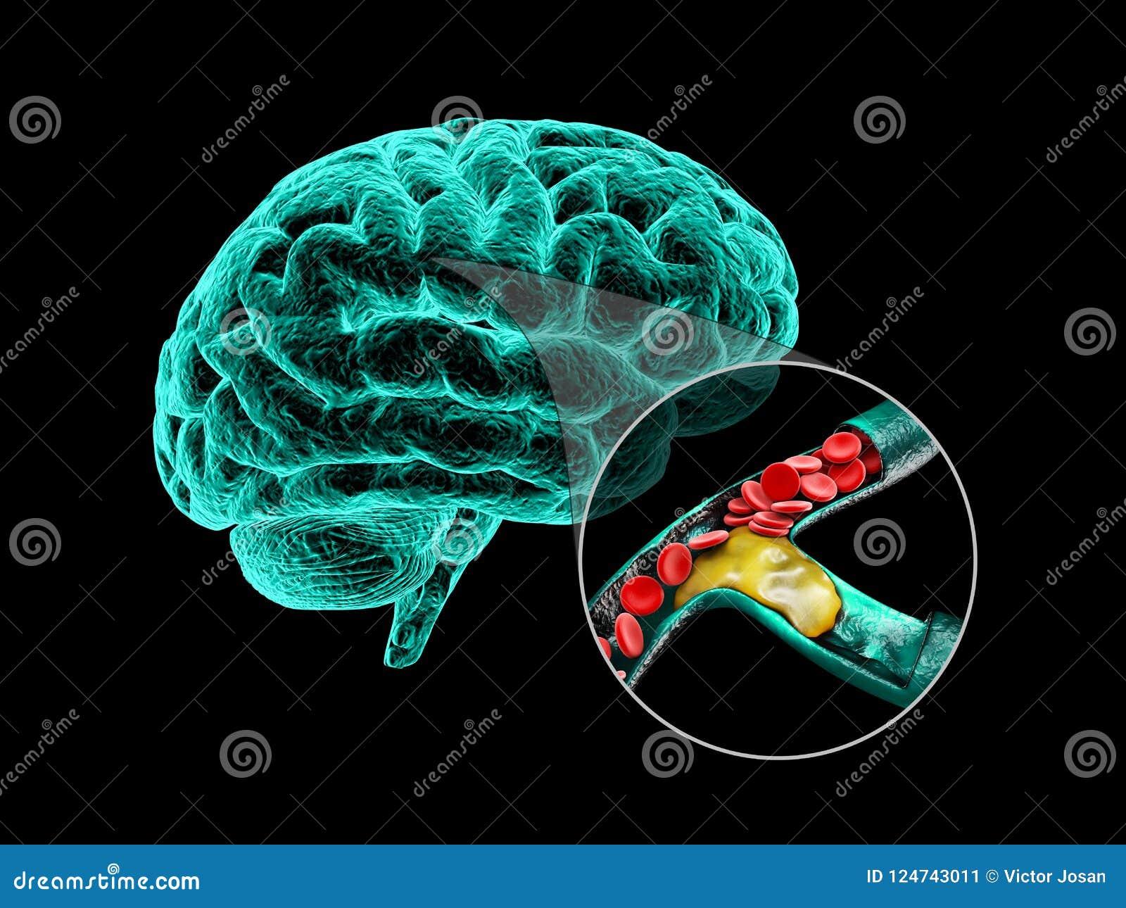 Cervello umano con la sclerosi cerebrale Illustrazione di anatomia 3d del cervello umano