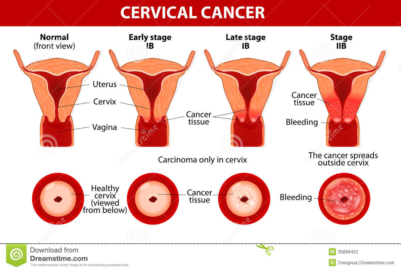 Cervical Cancer Carcinoma Of Cervix Stock Vector Illustration Of