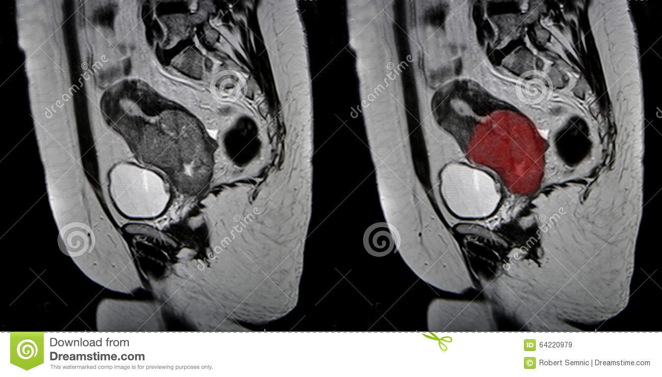 Cervical cancer, MRI stock image. Image of science, anatomy - 64220979
