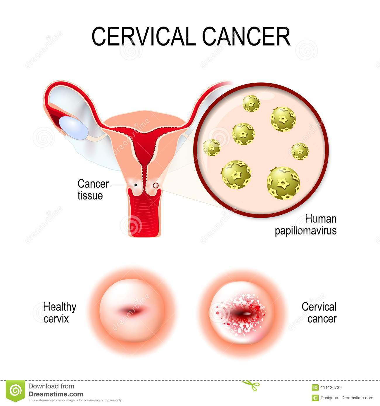 Cervical Cancer Uterus Cervix And Close Up Of The Human Papil
