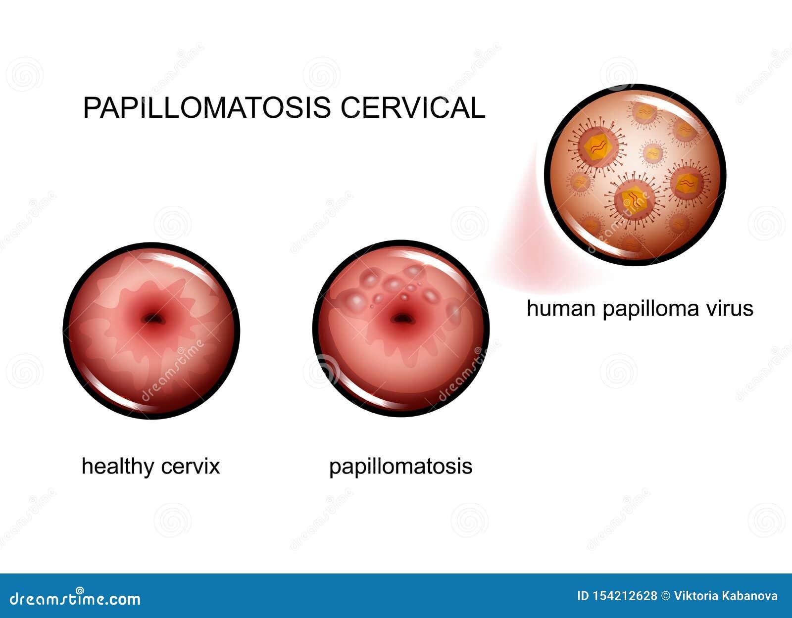 papilloma hpv virus