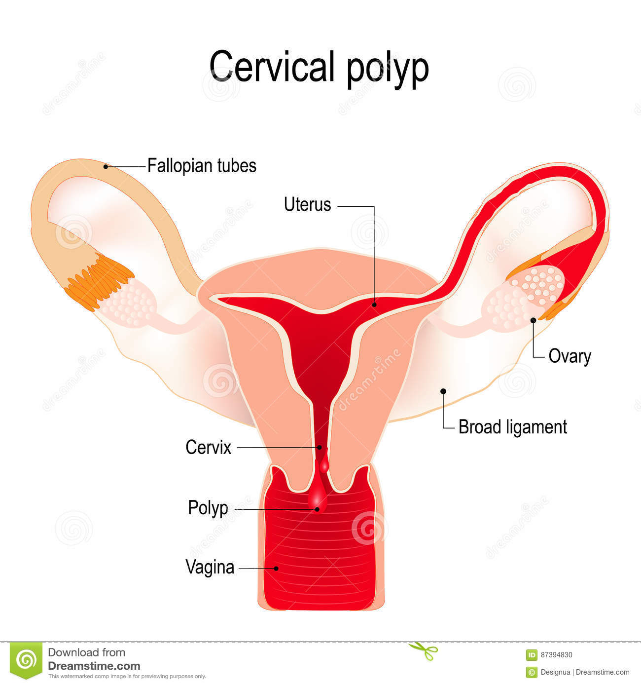 cervical polyp on the uterus stock vector - image: 87394830, Skeleton