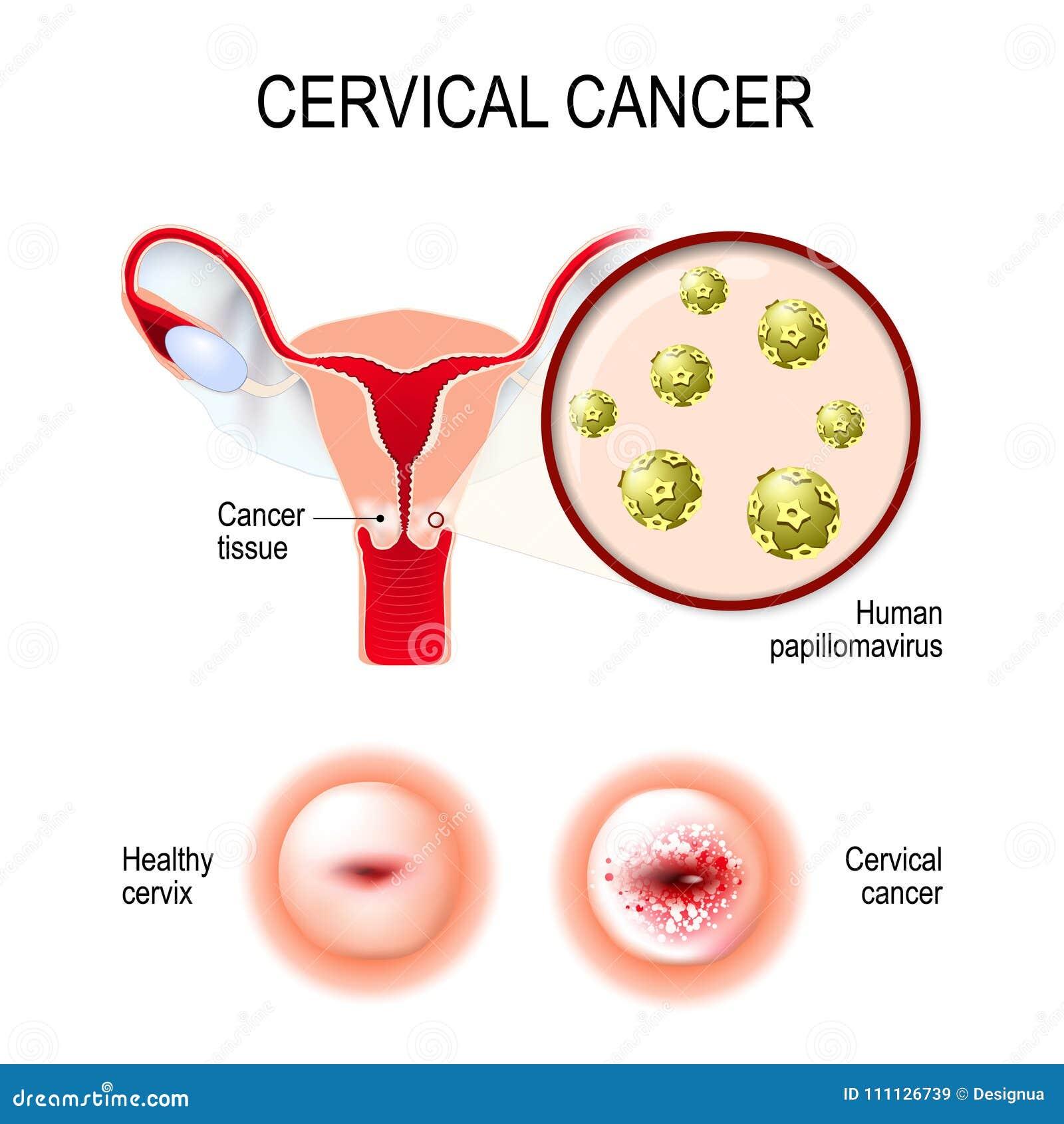 Cervikal cancer livmoder, hals och närbild av den mänskliga papilen