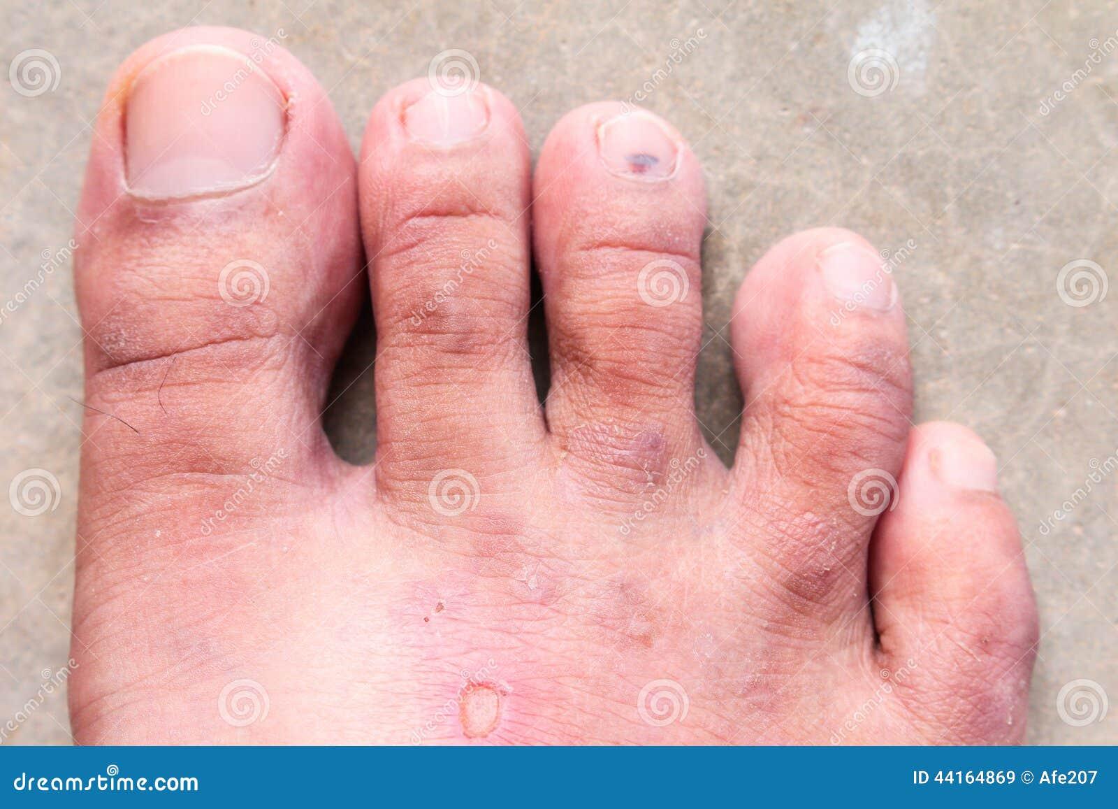 Champignon de psoriasis de pied d athlete's de peau de plan rapproché, pied de Hong Kong,
