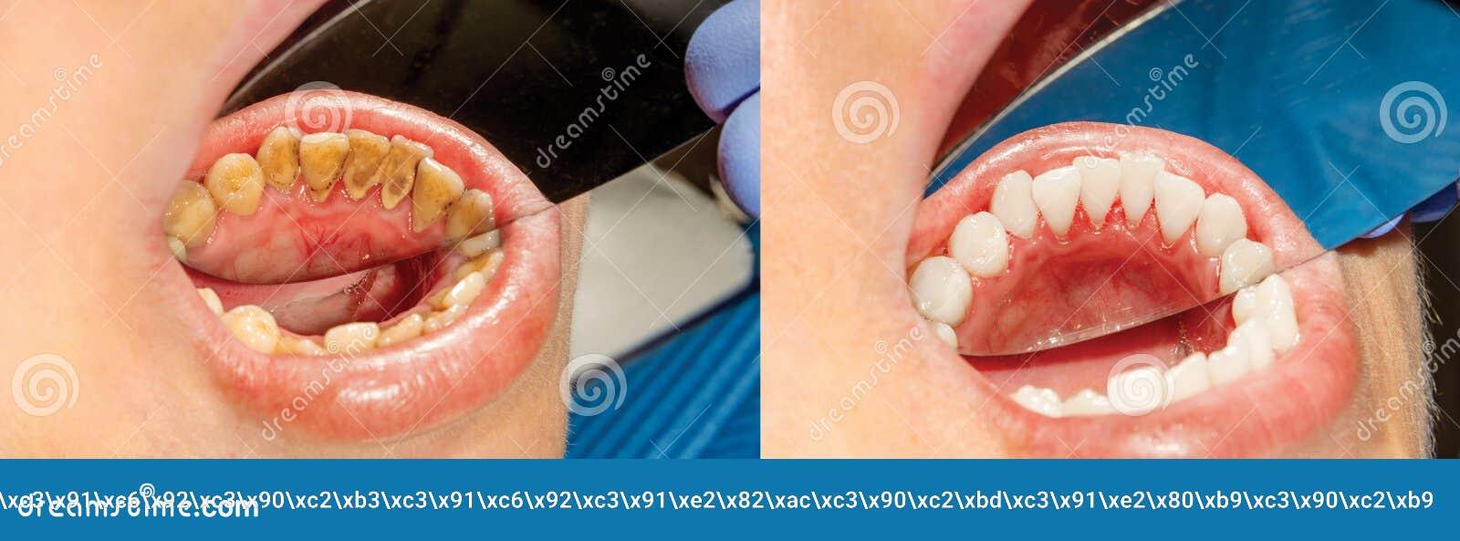 Chapa do paciente, pedra Tratamento da odontologia do plaq dental