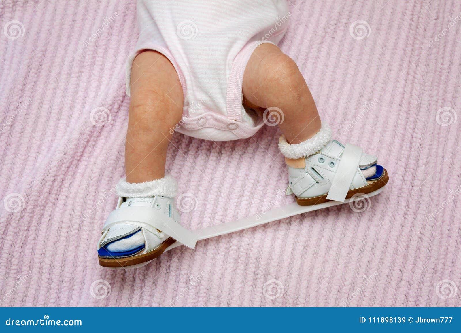 meilleur service 5337f da7cc Chaussures Orthopédiques Nouveau-nées Image stock - Image du ...