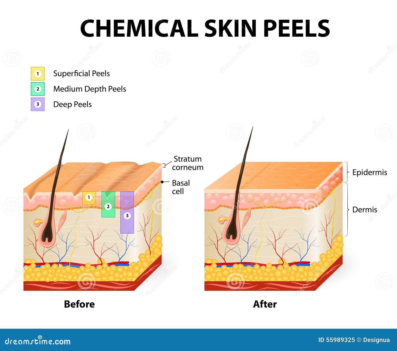Chemical Peels Stock Vector