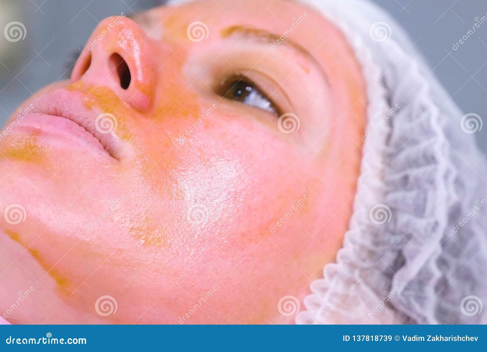 Chemische schil o het gezicht van de vrouw Schoonmakend de gezichtshuid en verlichtend sproetenhuid Het gezicht van de close-up Z
