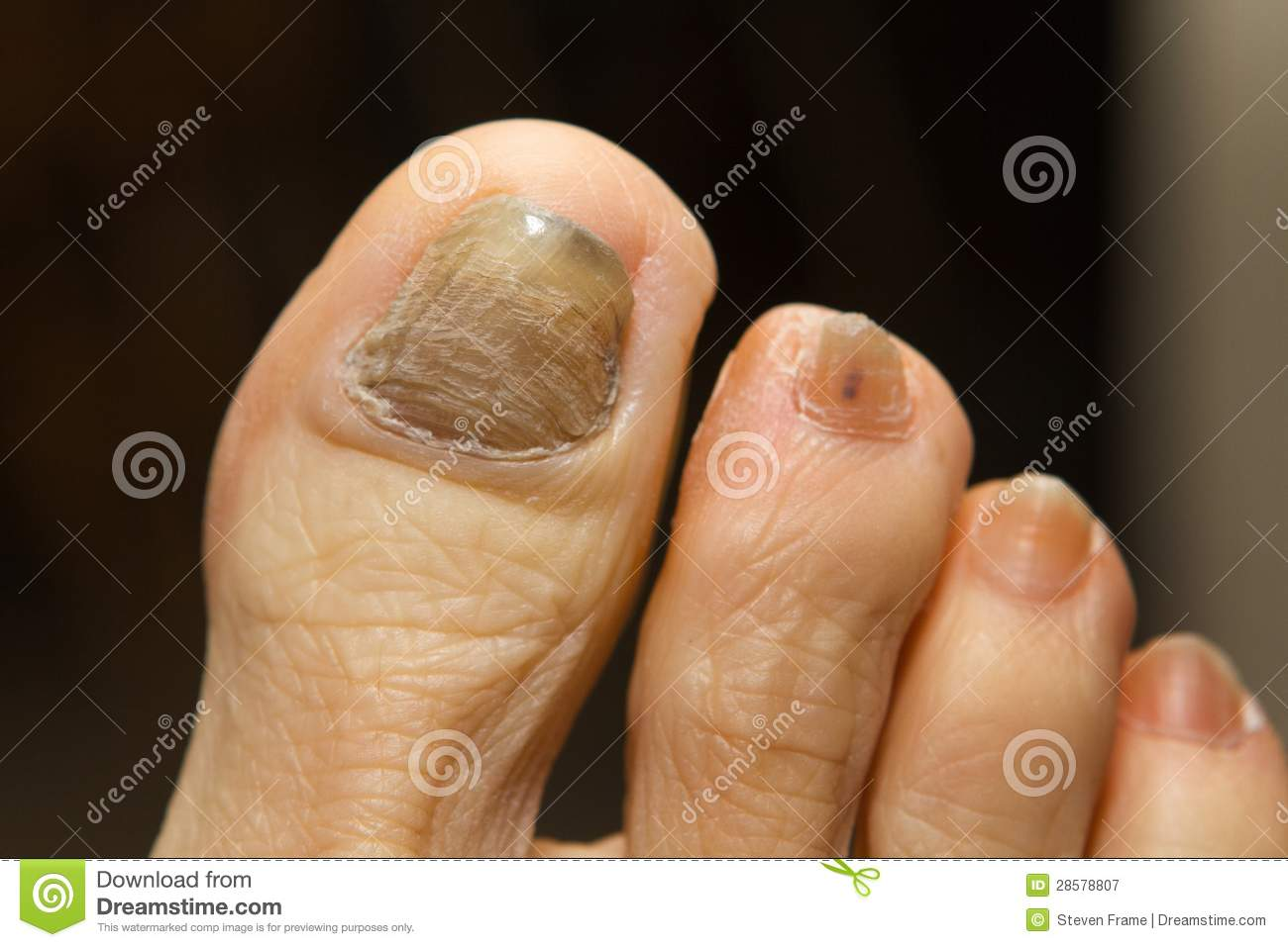 Chemotherapy Fungus Toenail Stock Image - Image of cancer, health ...
