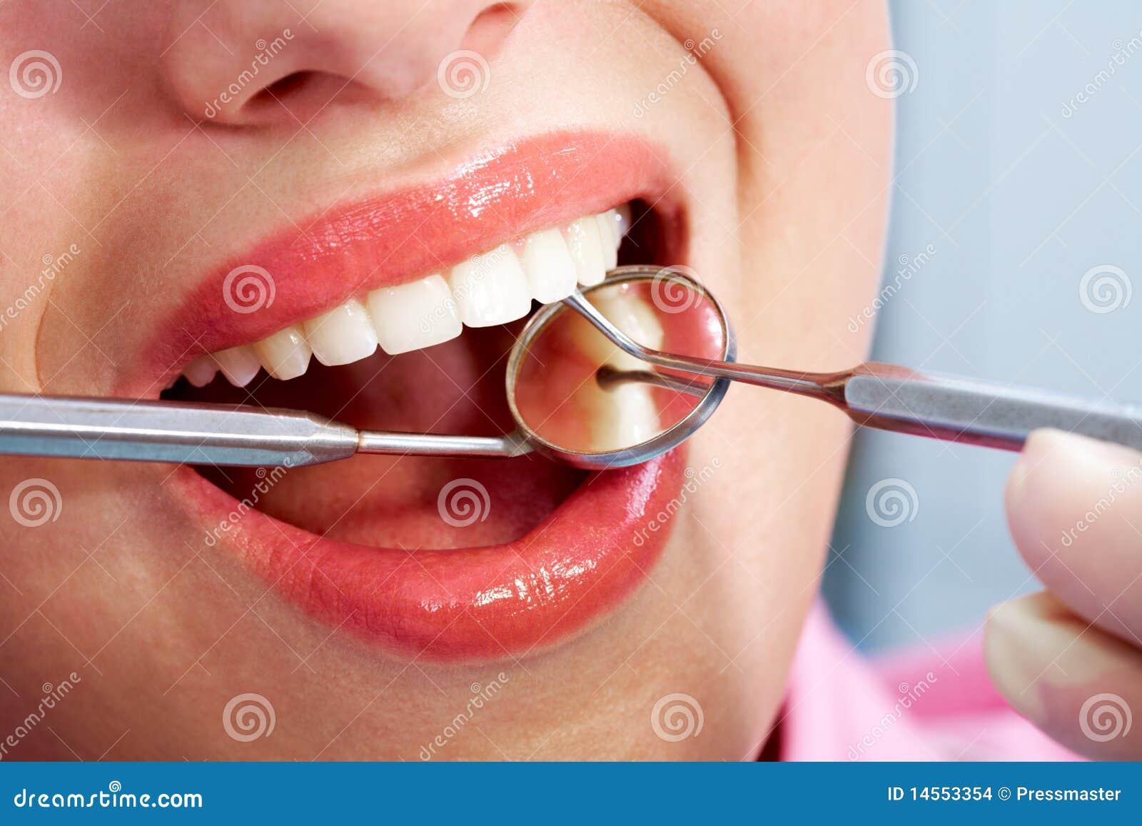 Chequeo dental
