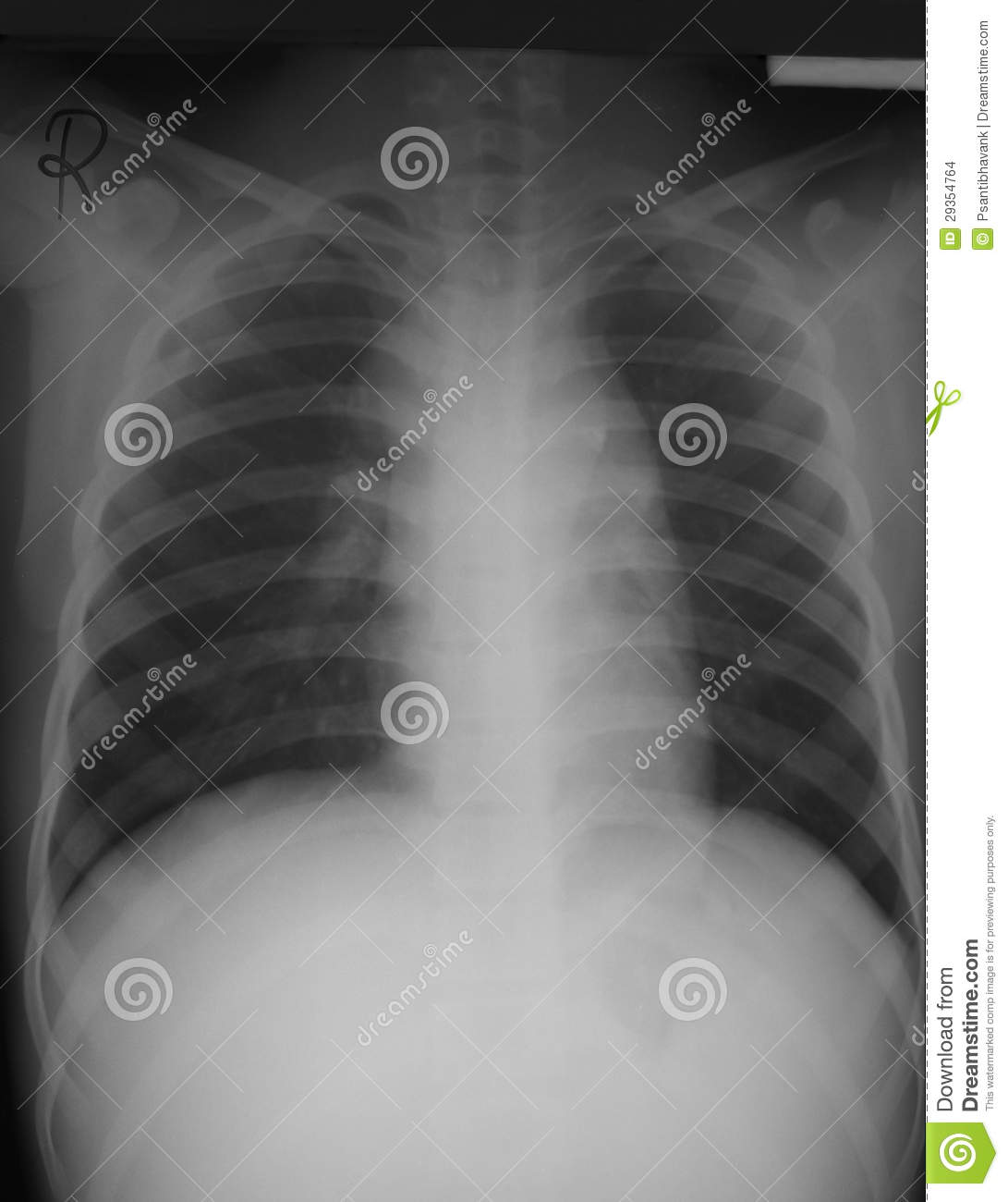 chest film antero posterior (ap) view of a 15 years old man withchest film antero posterior (ap) view of a 15 years old man with