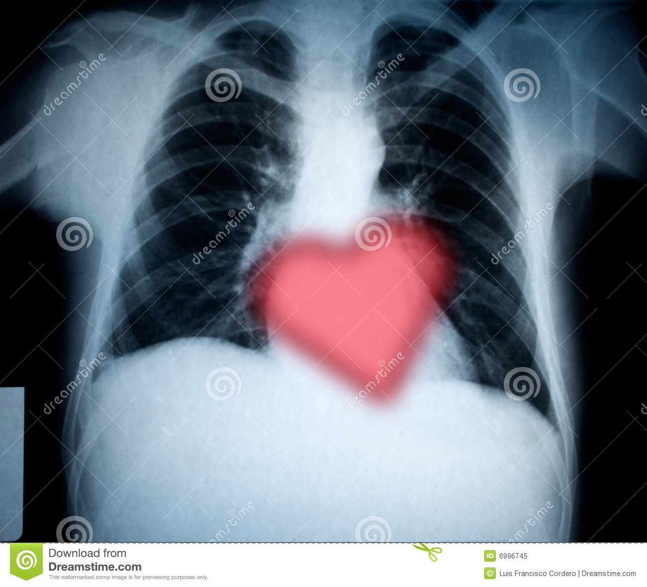 Chest and heart