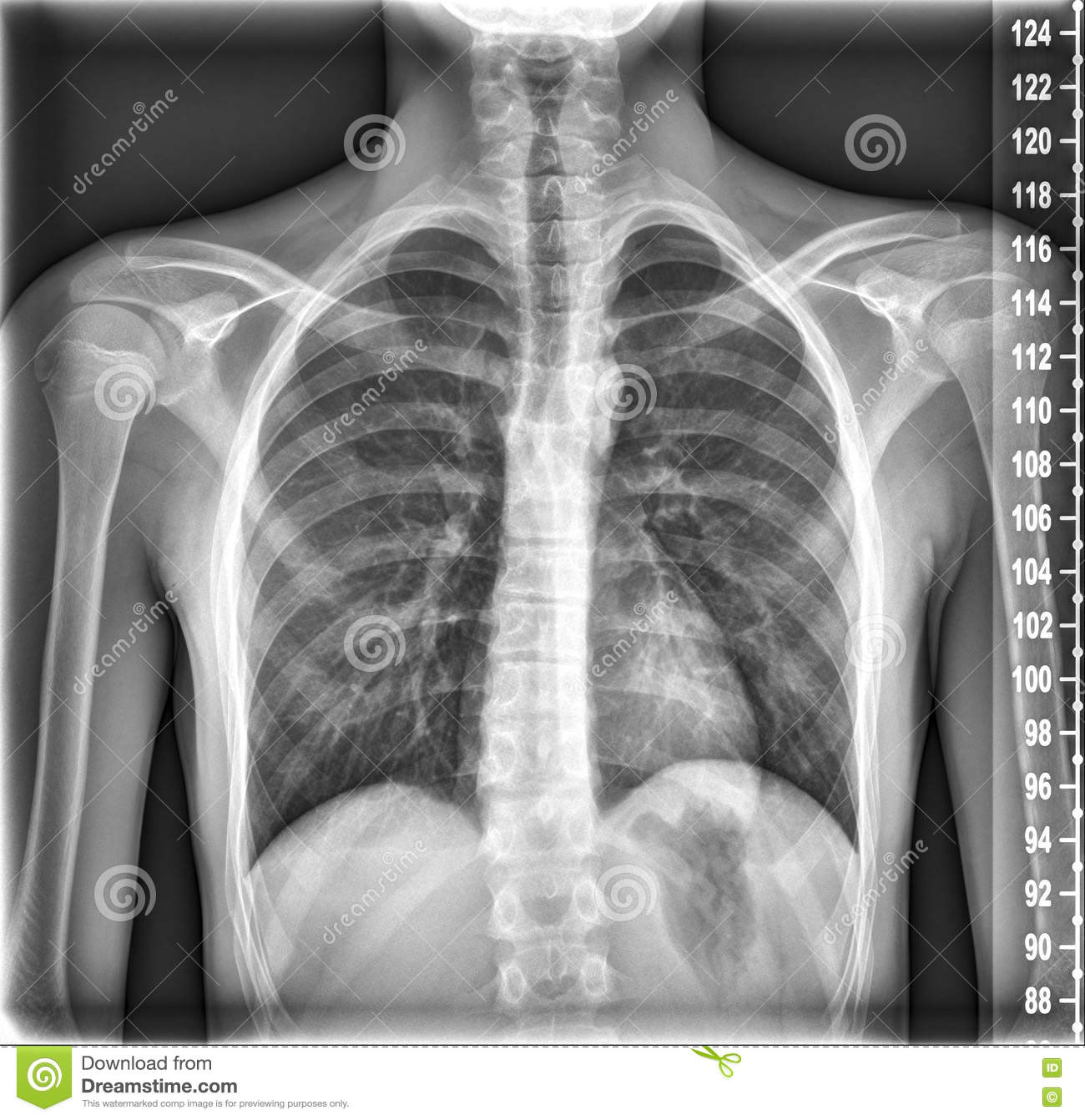 Chest Medical Xray, Lungs and Heart View