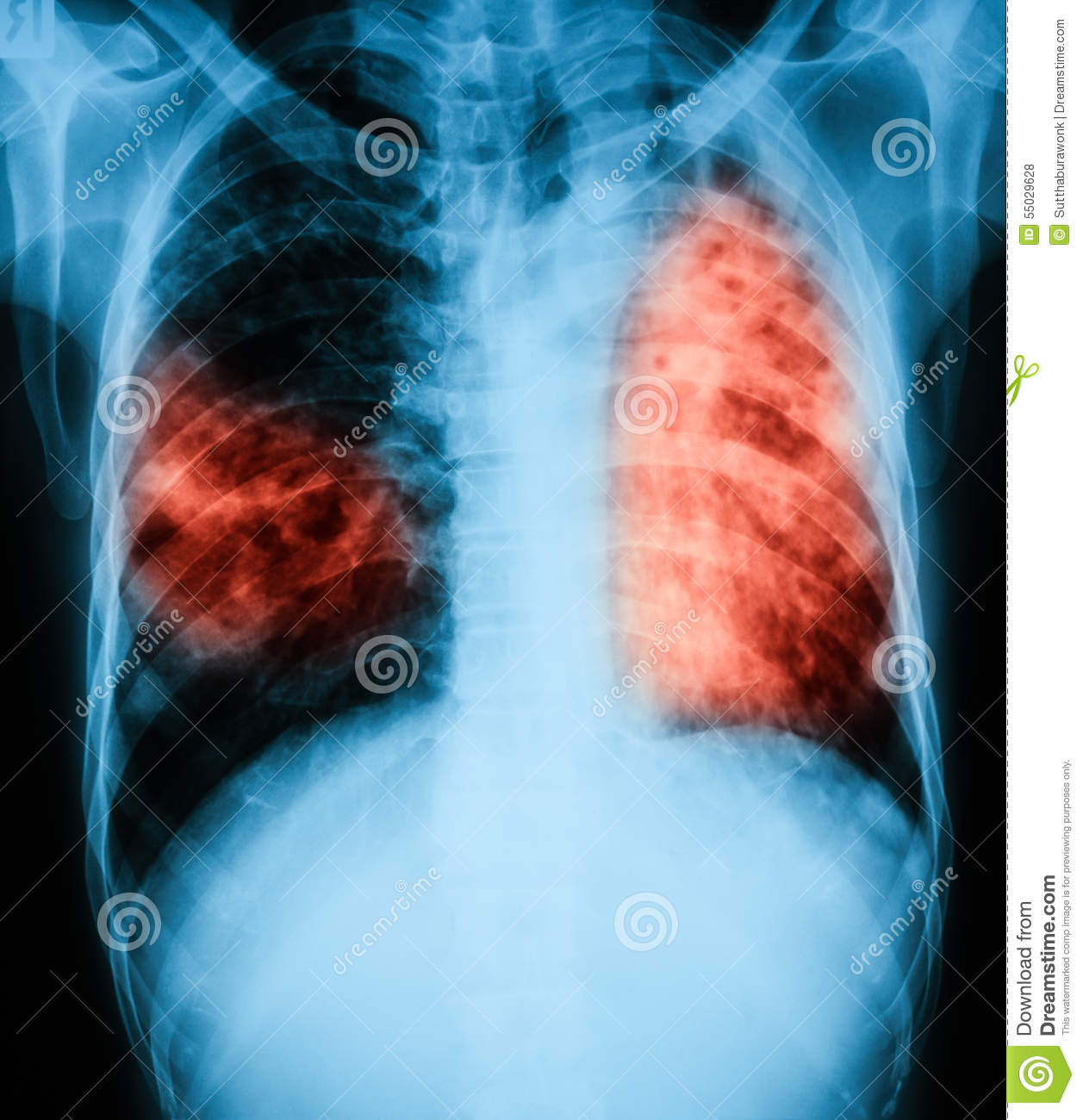 Chest x-ray image of a patient with pulmonary tuberculosis.