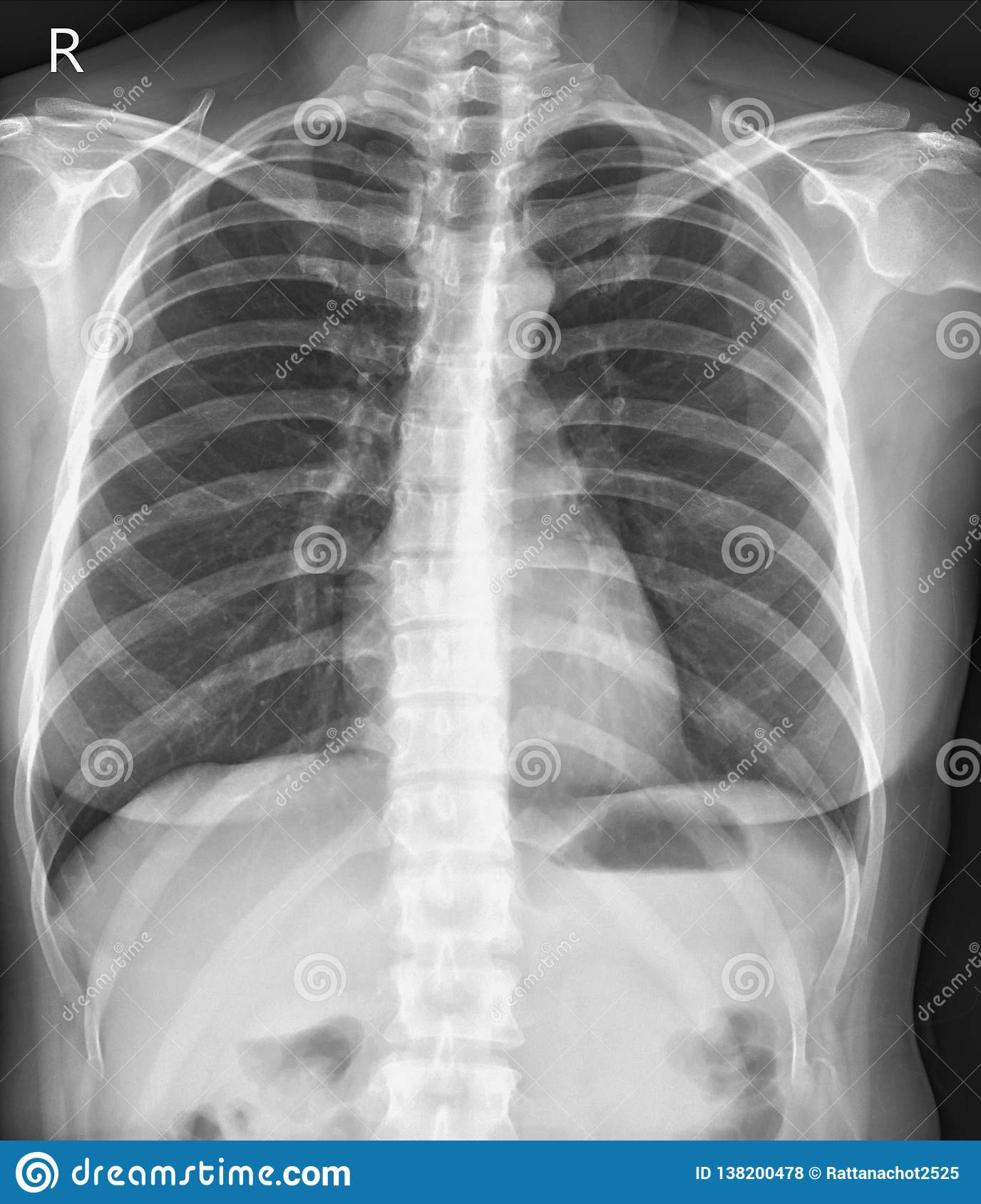 Free Chest Xray Cliparts, Download Free Clip Art, Free Clip Art on Clipart  Library