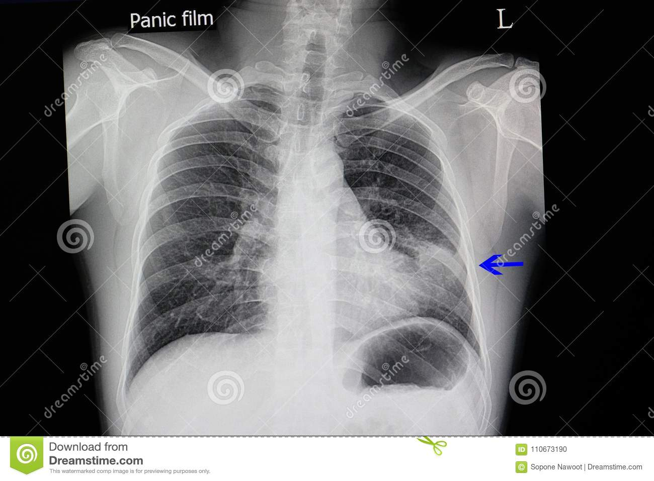 chest x ray of a patient with pneumonia stock photo image of