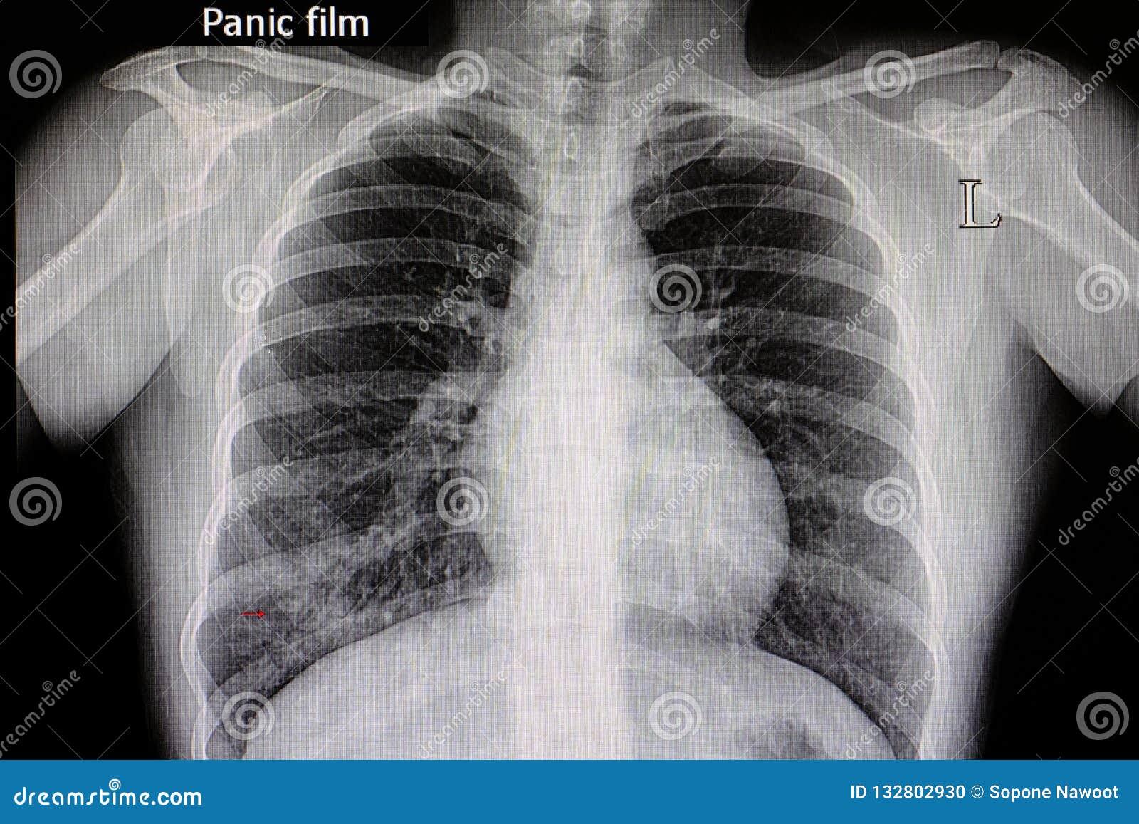 pneumonia chest film