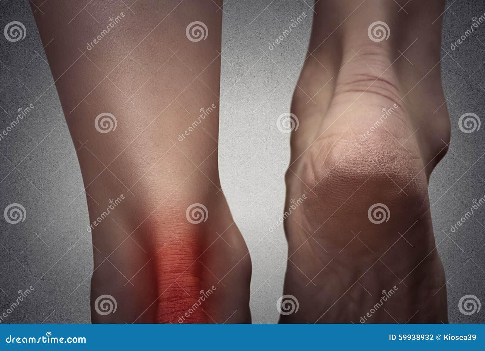 Tache rouge pied