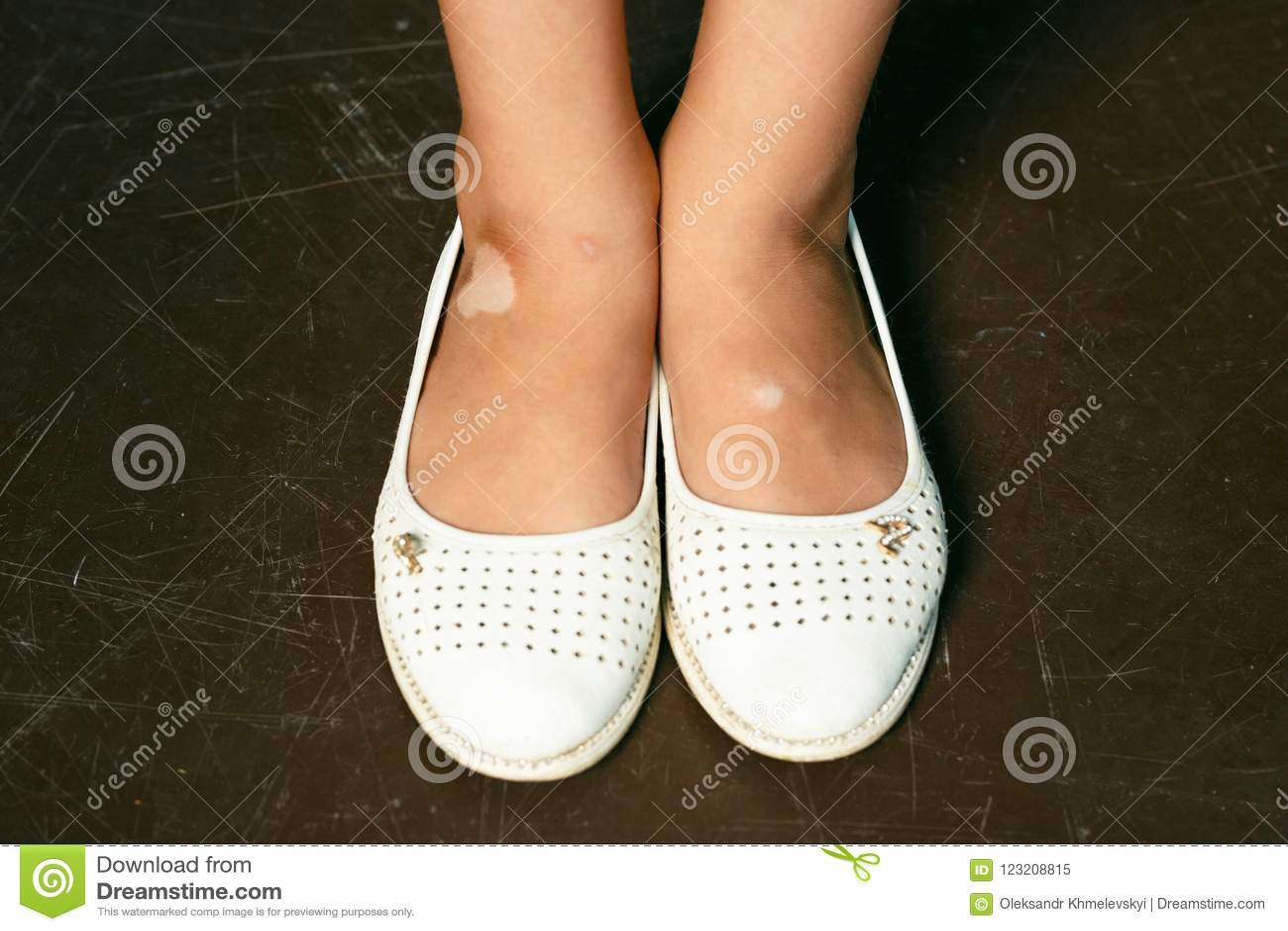 Child Legs With Vitiligo At Skin Stock Image Image Of Condition Leucopathia 123208815