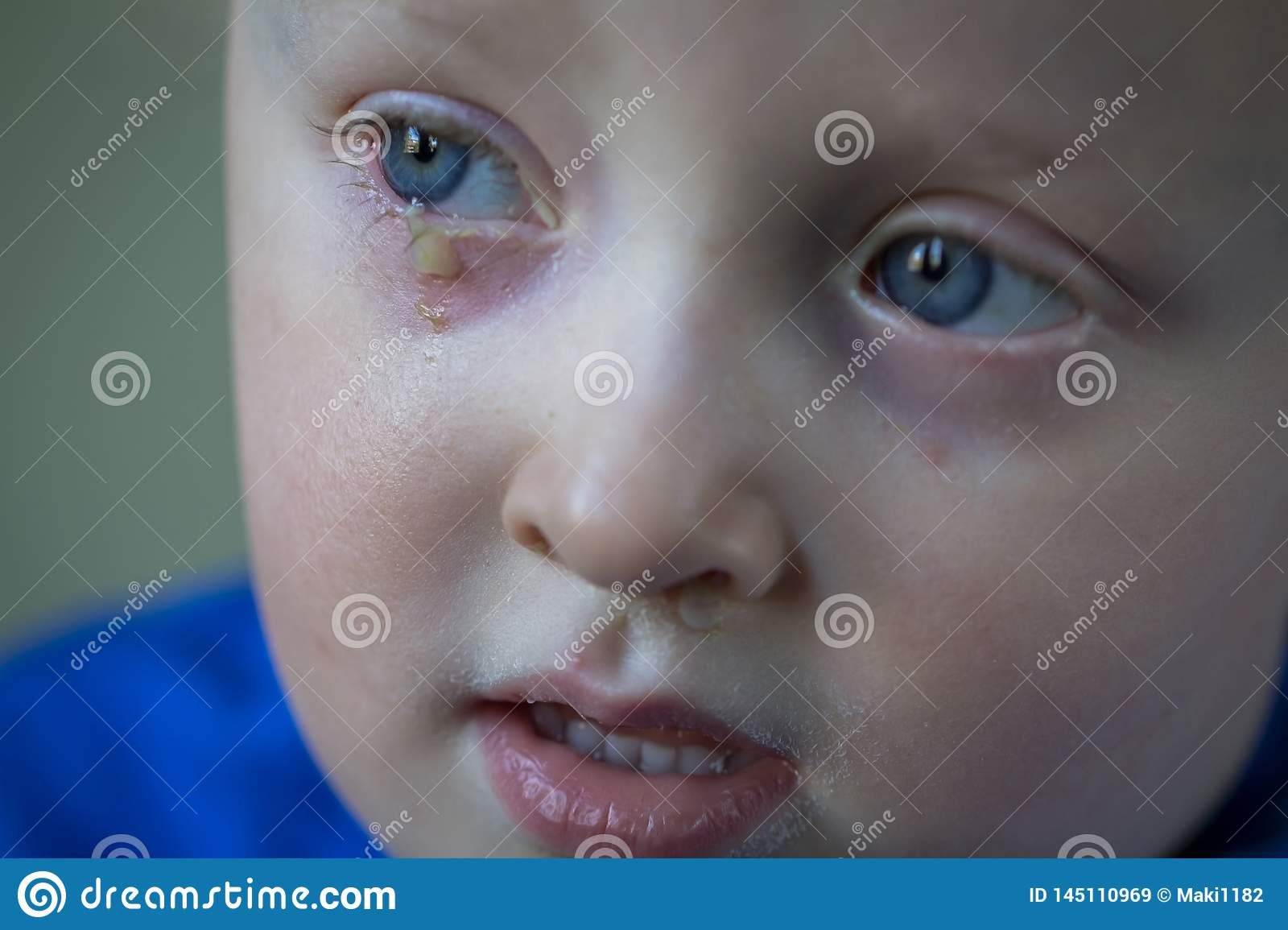 Child with purulent conjunctivitis, contagious eye infection. Symptoms and treatment concept. Close up