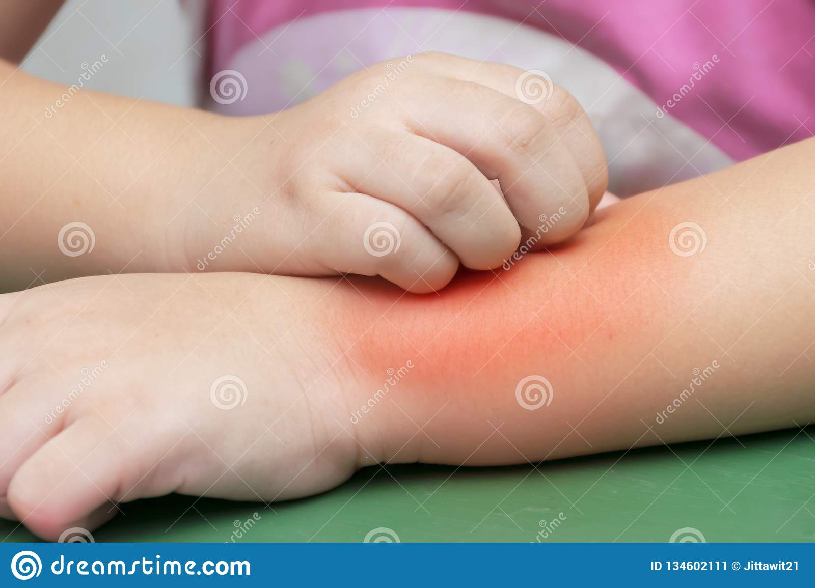 Children Are Scratching Their Arms After The Mosquito Bites Stock