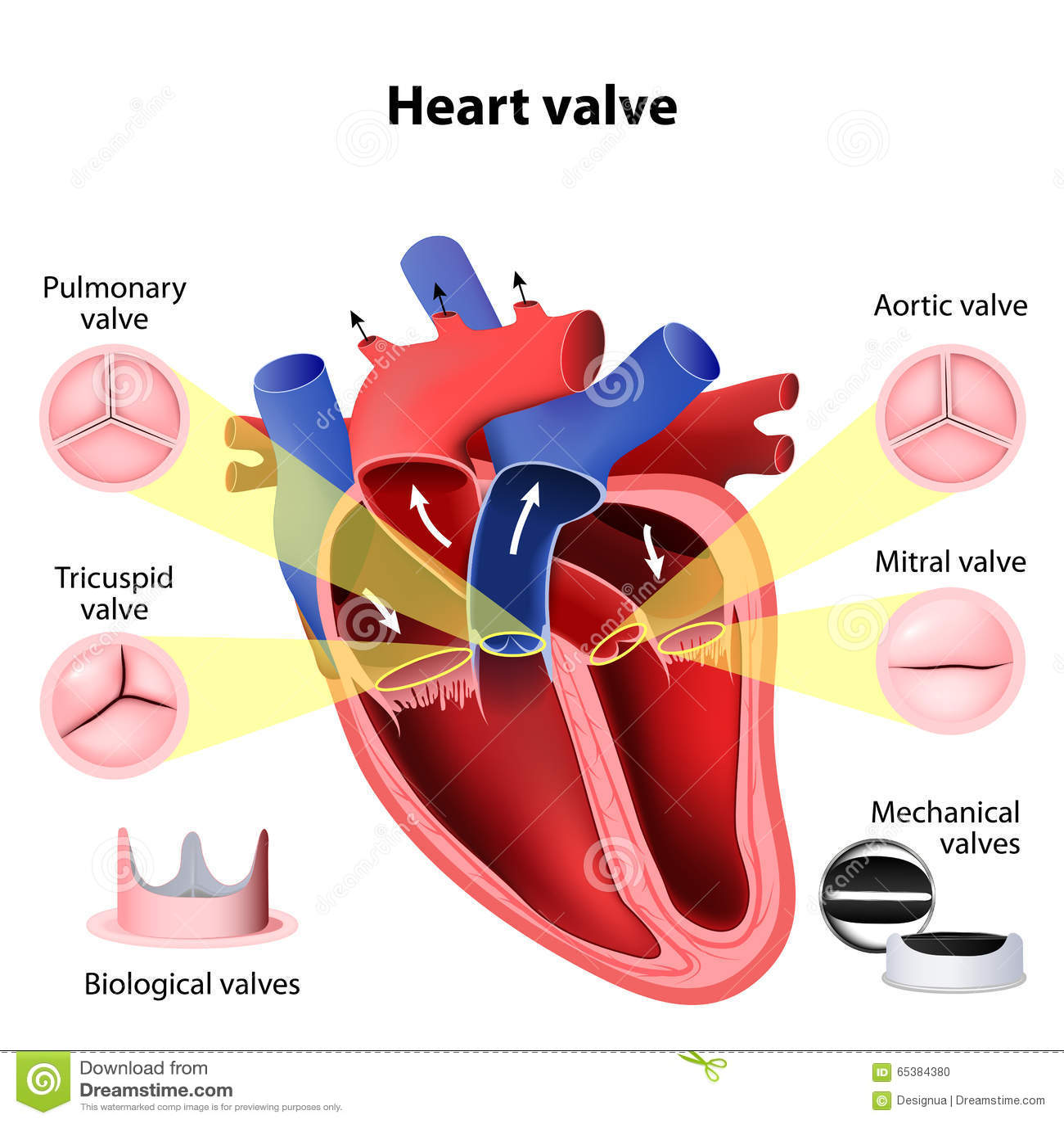 Chirurgie de valvule cardiaque