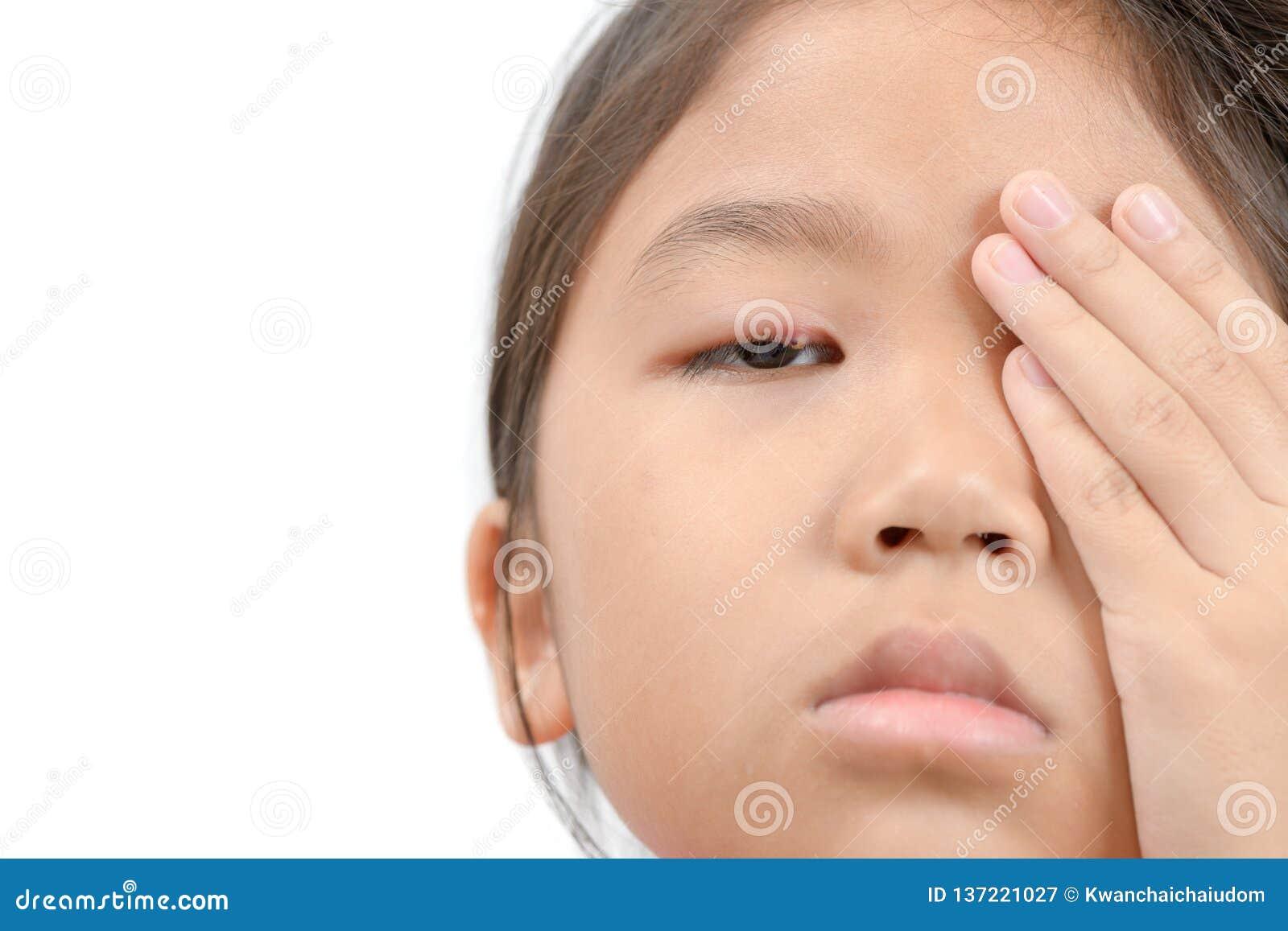 Chiuda su dell infezione di occhio asiatica della bambina una isolata