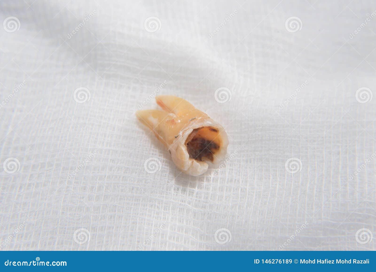 Chiuda su di un danno e di un dente molare rotto su una garza bianca