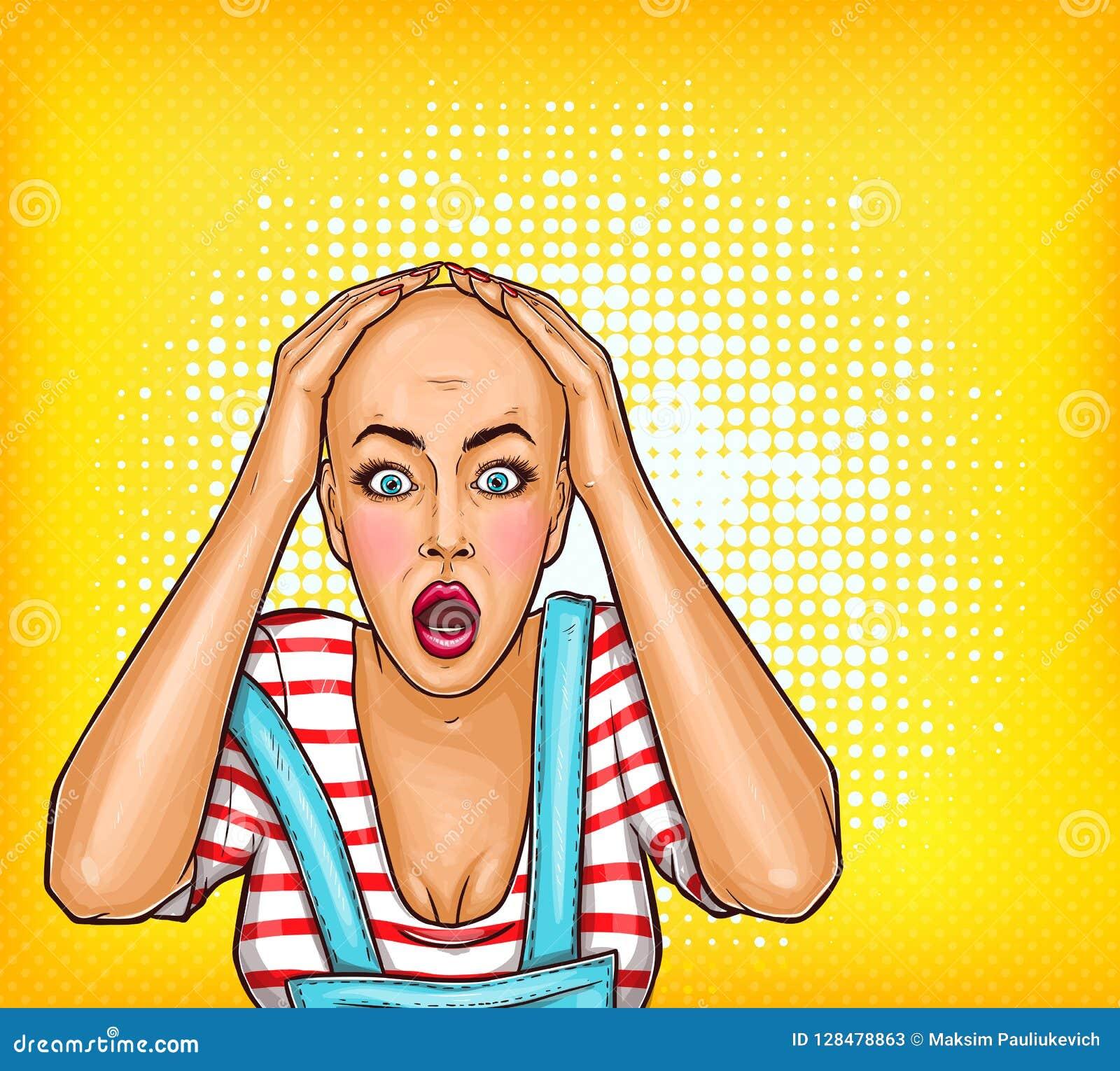 Chockad flicka för popkonst efter kemoterapi eller dålig frisyr Skallig kvinna med cancer Oncologyillustration, behandling