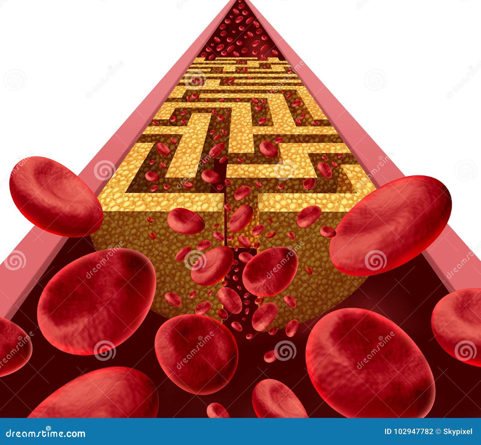 Cholesterol choroby wyzwanie