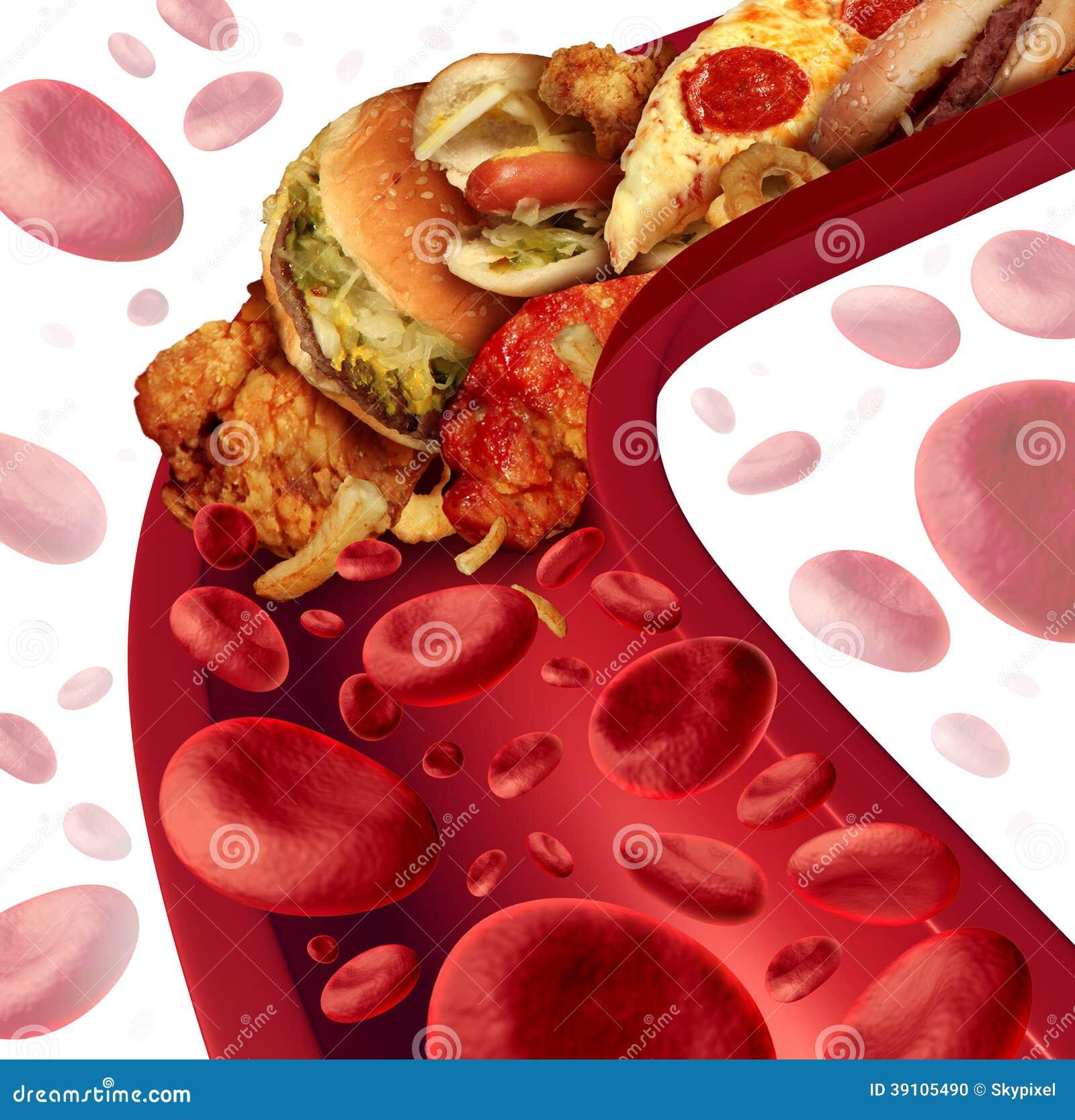 Cholesterol Geblokkeerde Slagader