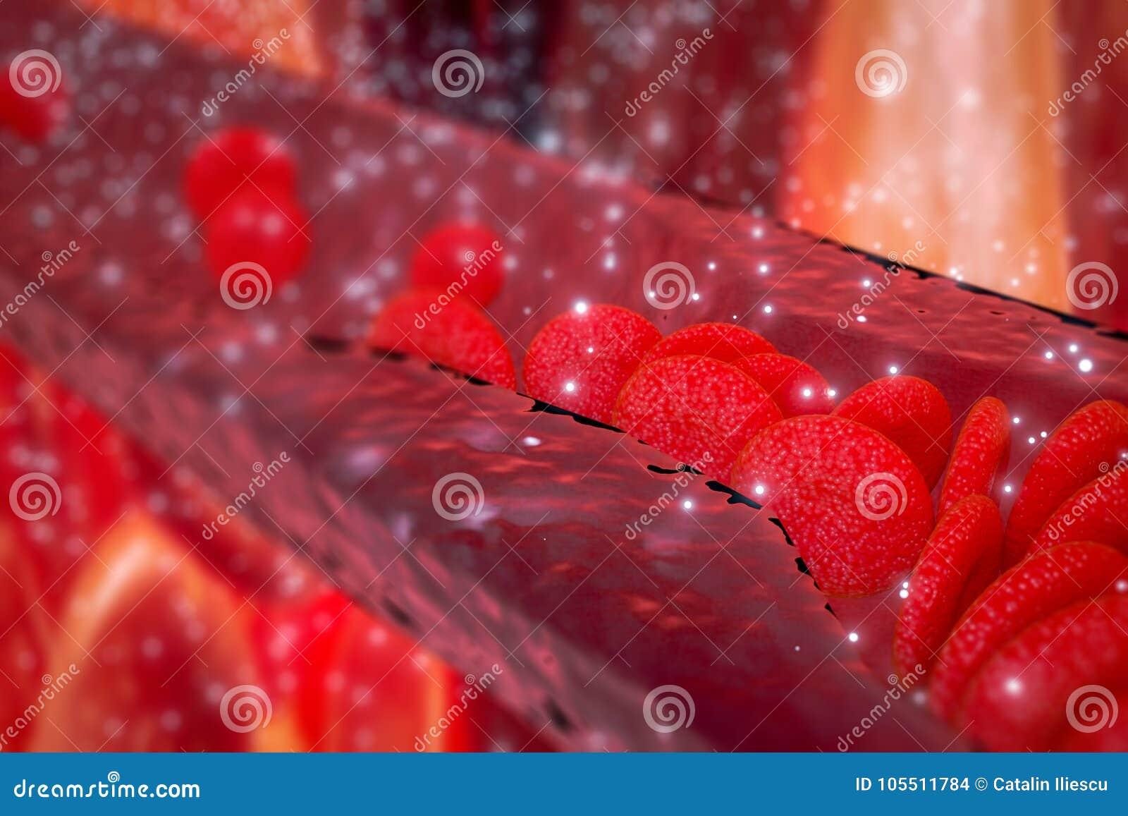 Cholesterol plakieta w arterii, naczynie krwionośne z bieżącymi komórkami krwi