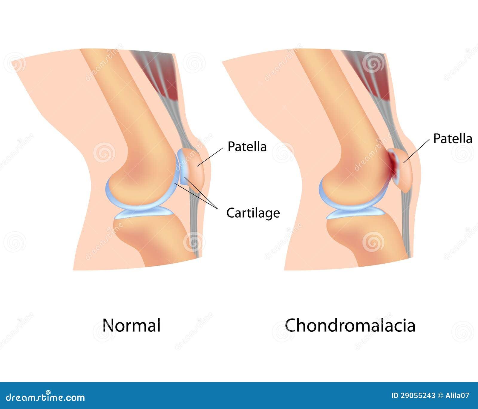 chondromalacia stock photos - image: 29055243, Skeleton