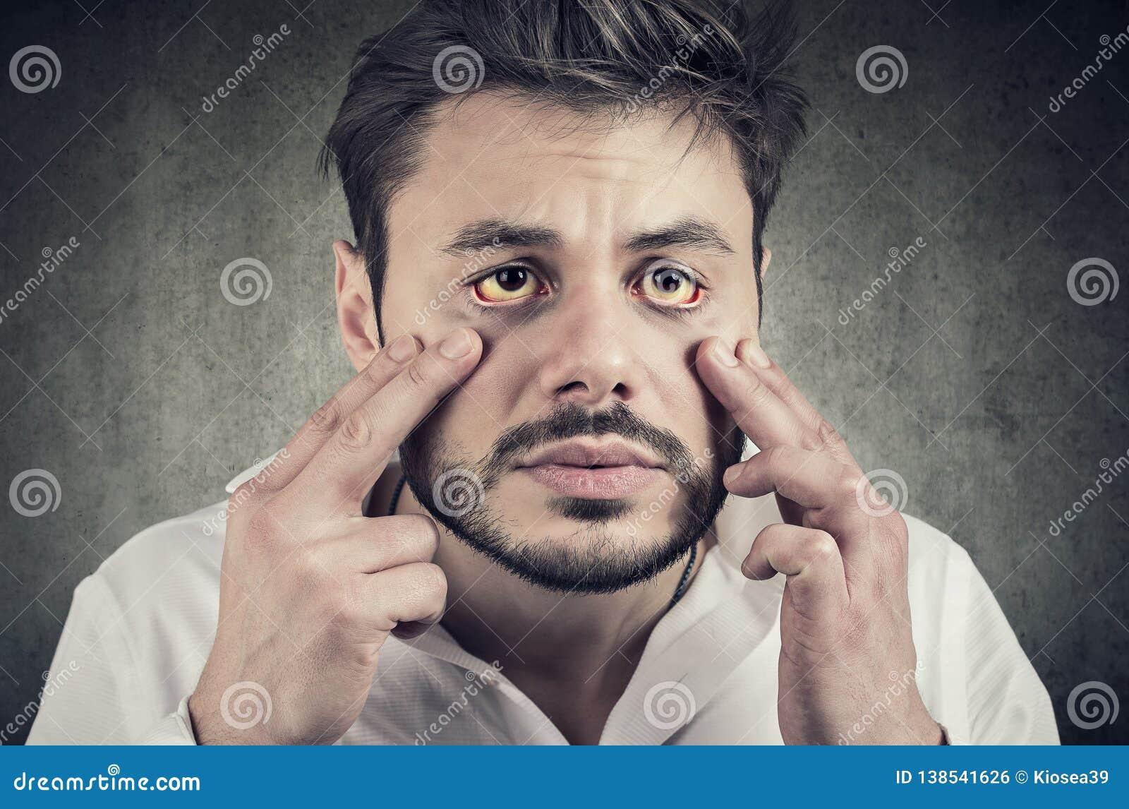 Chory mężczyzna patrzeje w lustrze yellowish oczy jak znaka ewentualna wątrobowa infekcja lub inna choroba