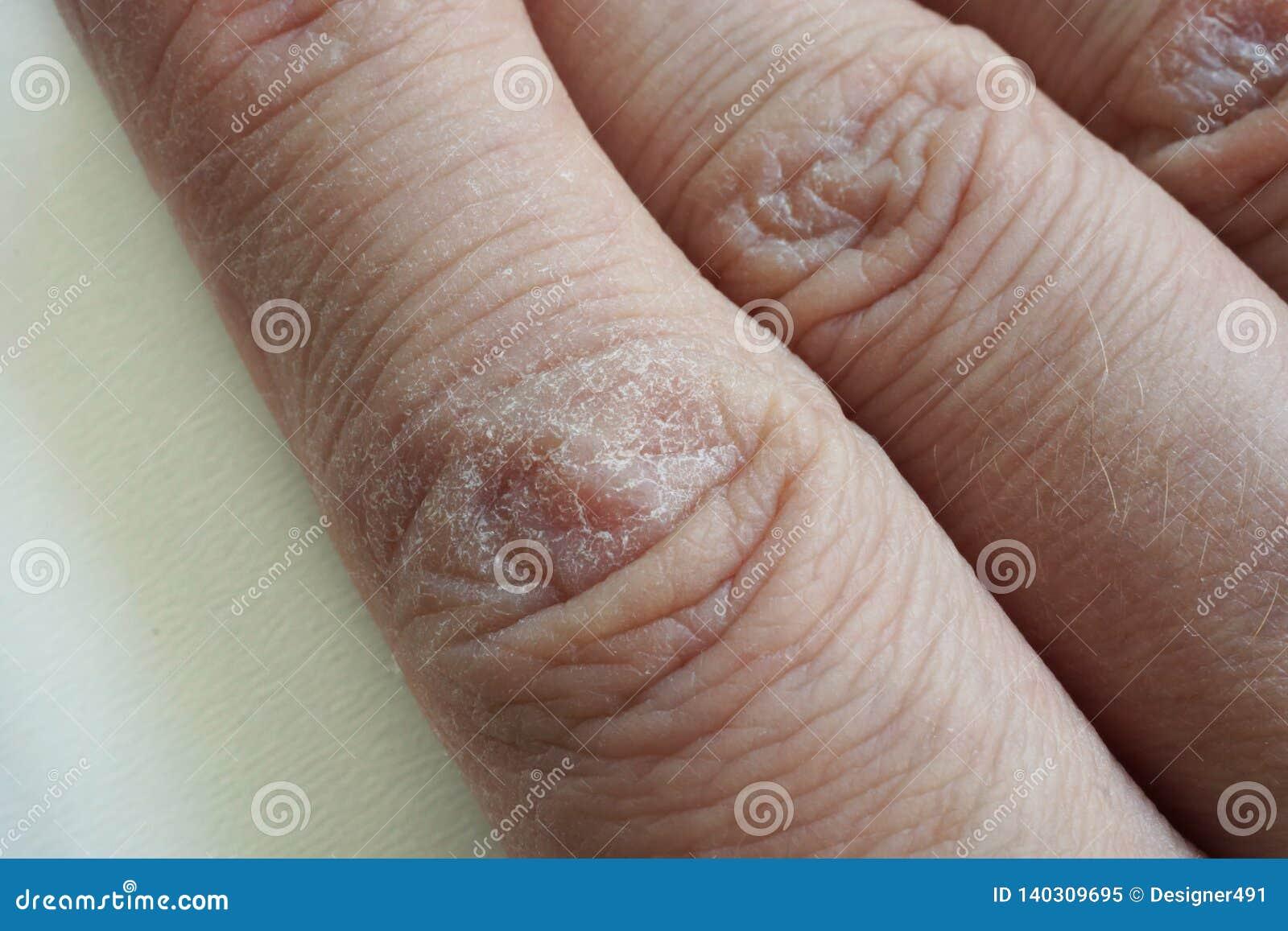Ciérrese para arriba de manos con la piel agrietada seca