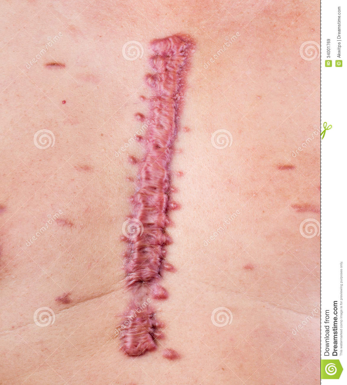 hypertrophic scar treatment steroid injection