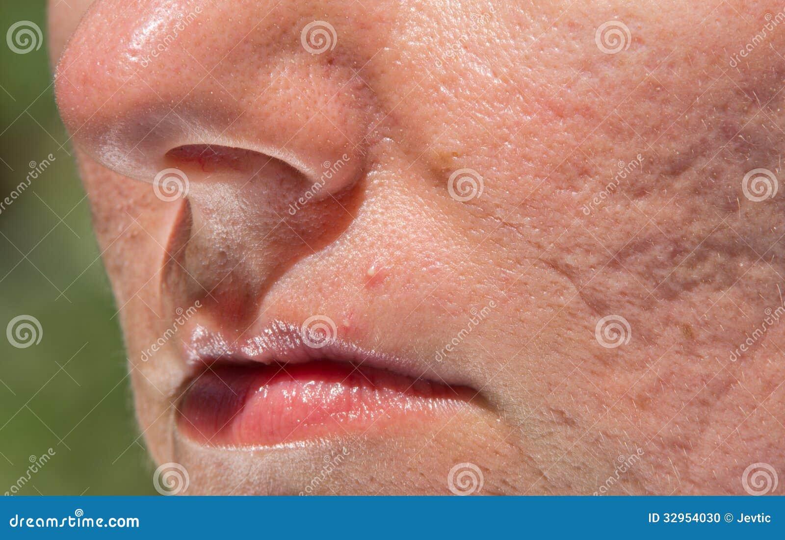 σπυρακια στο προσωπο