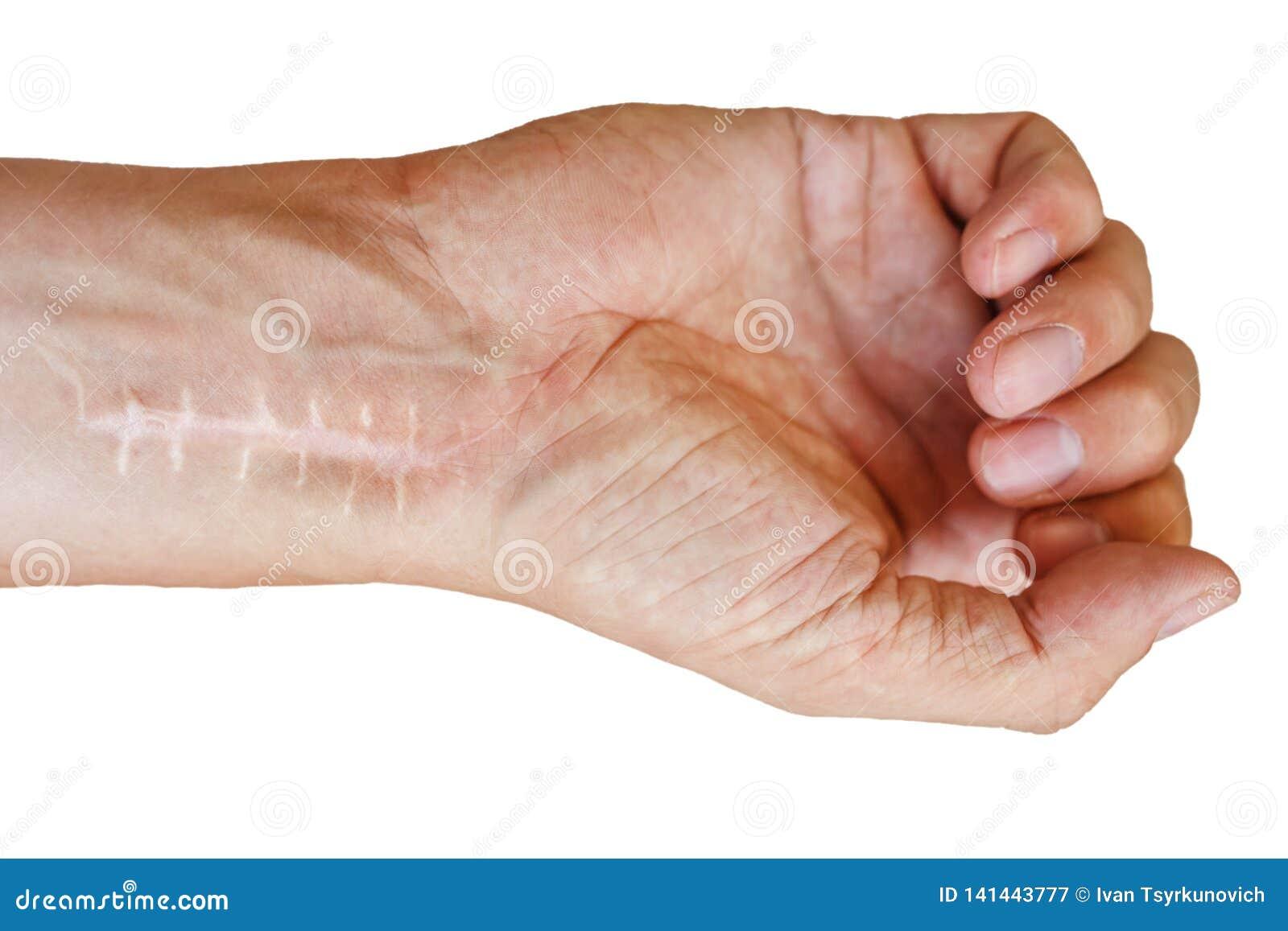 Cicatriz com os pontos no pulso após a cirurgia Fratura dos ossos das mãos no punho isolado no fundo branco