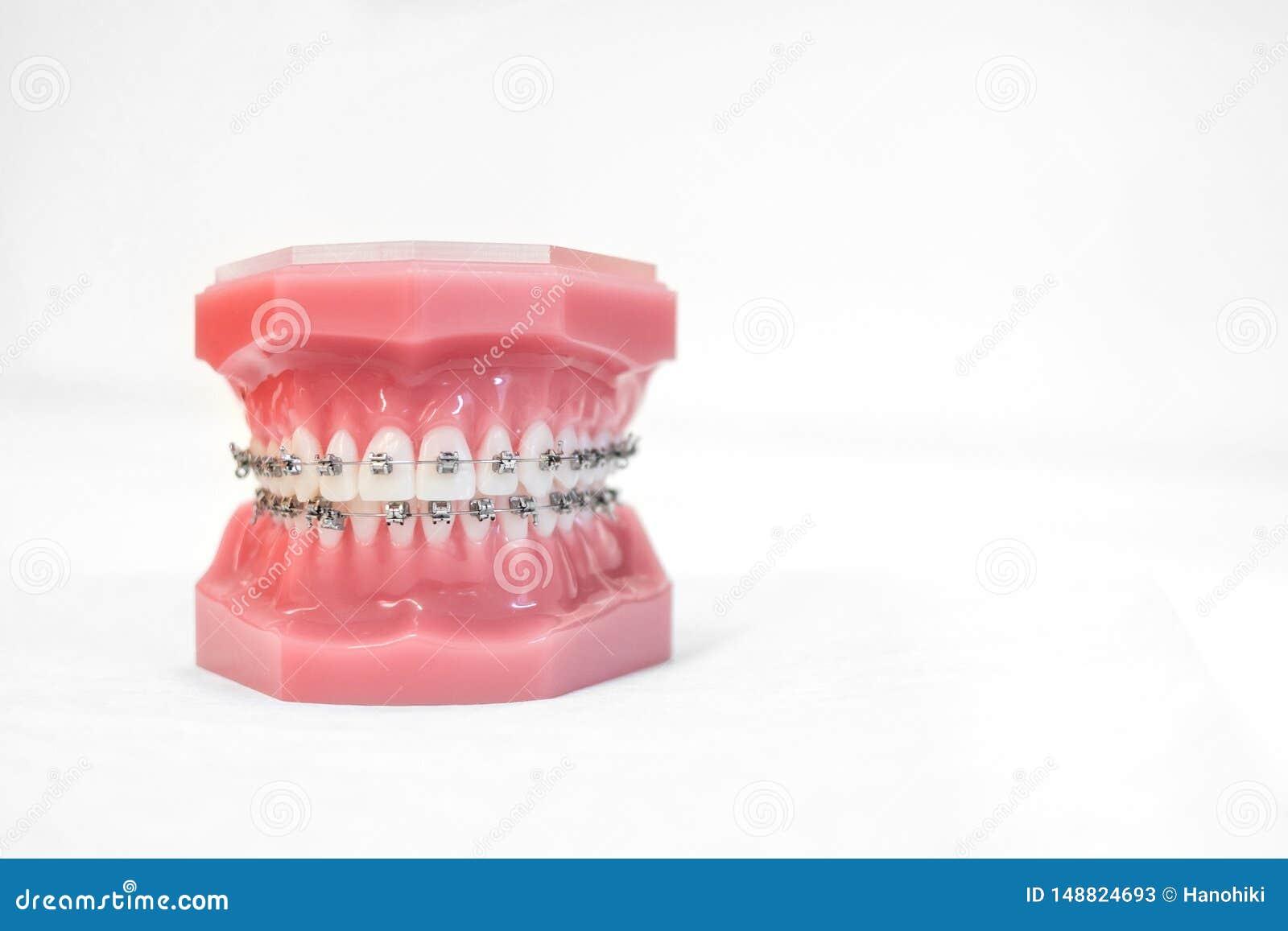 Cintas no modelo dos dentes do suporte ou da cinta ortodôntica