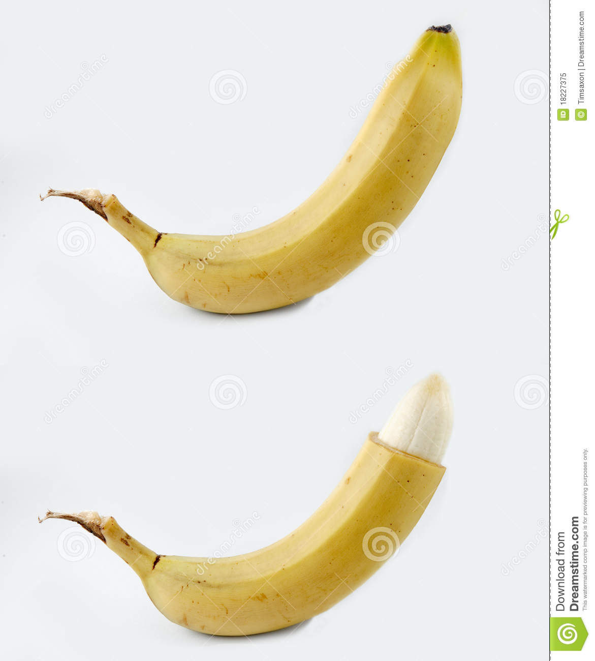 Circumcision - Before And After Royalty Free Stock Photo - Image ...