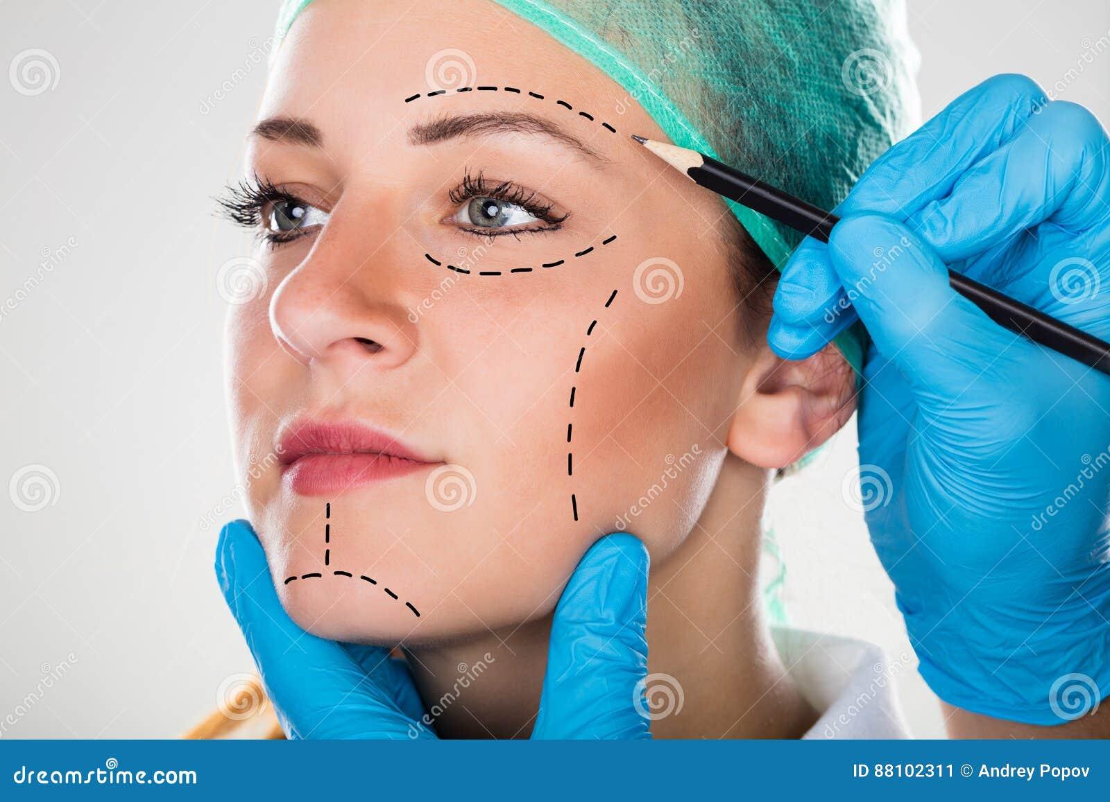 Cirujano Drawing Perforation Lines en cara del ` s de la mujer