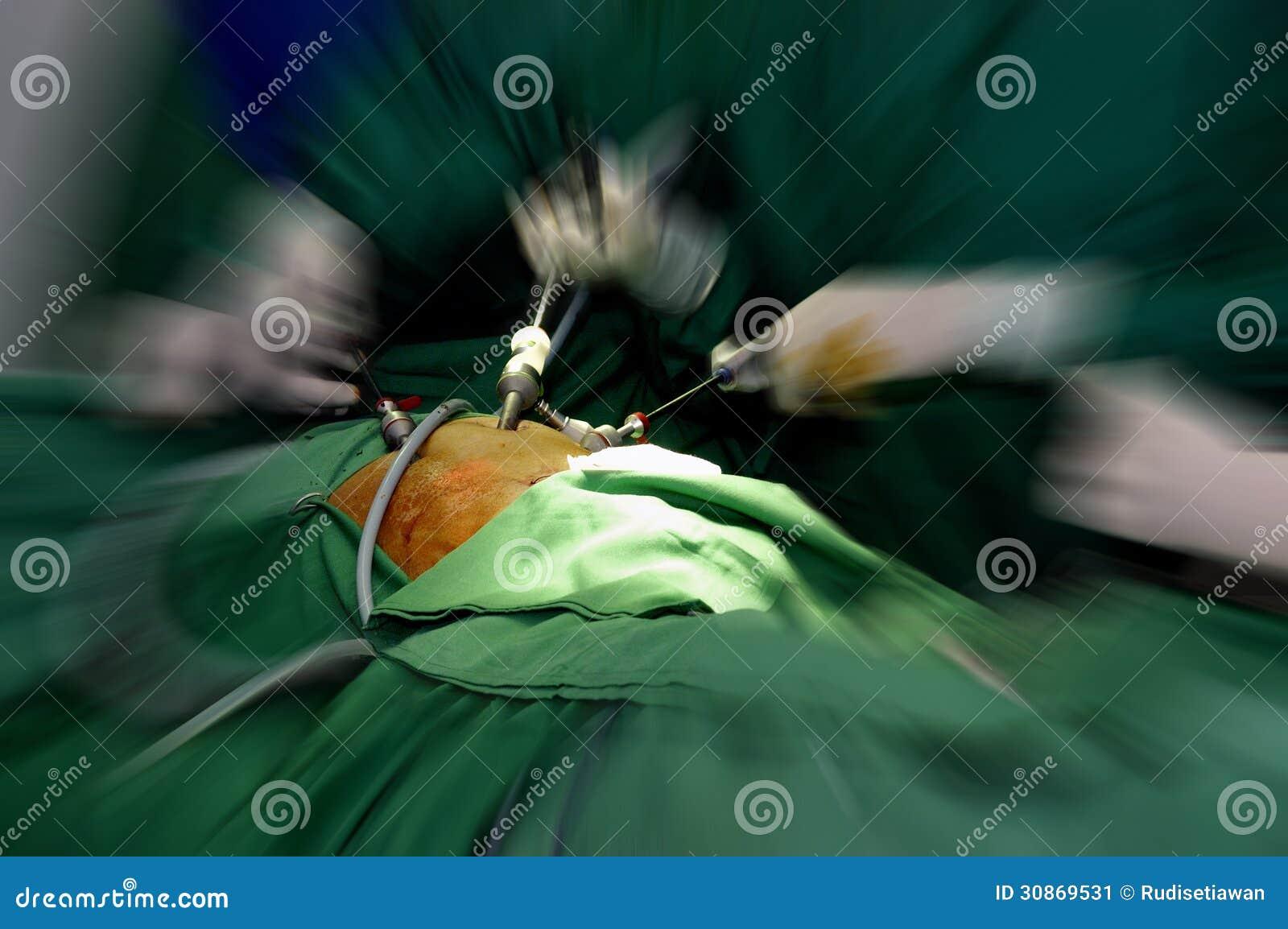 Cirurgia Laparoscopic