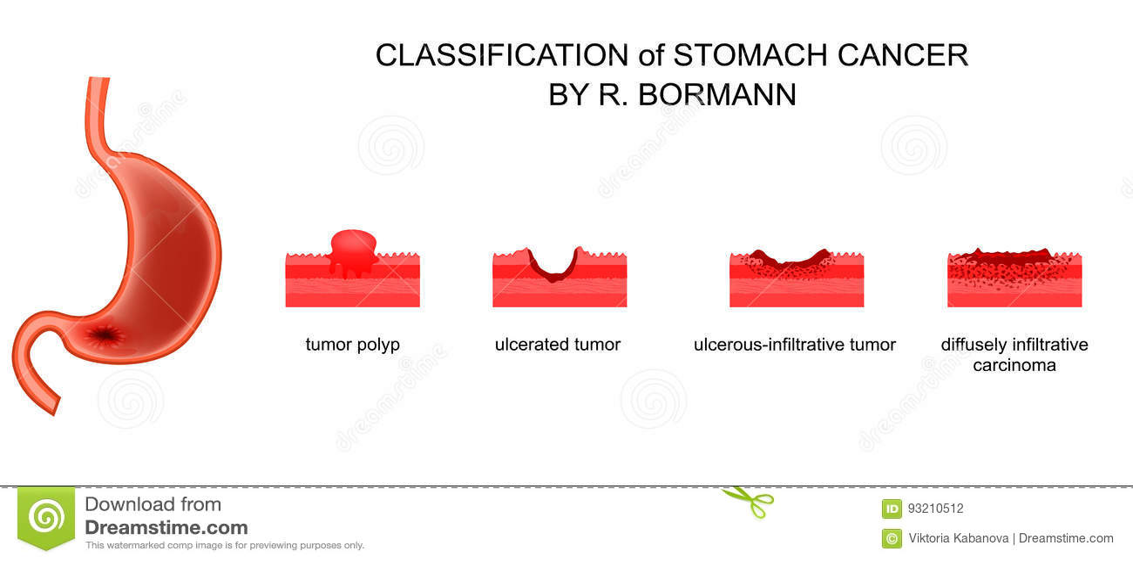 gastric cancer borrmann modul de a determina dacă există viermi