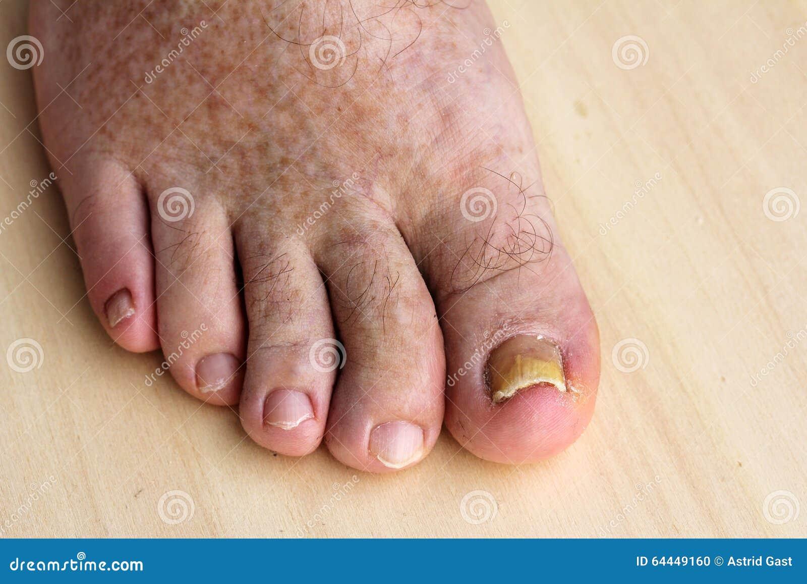 El primer indicio del hongo de las uñas en los pies