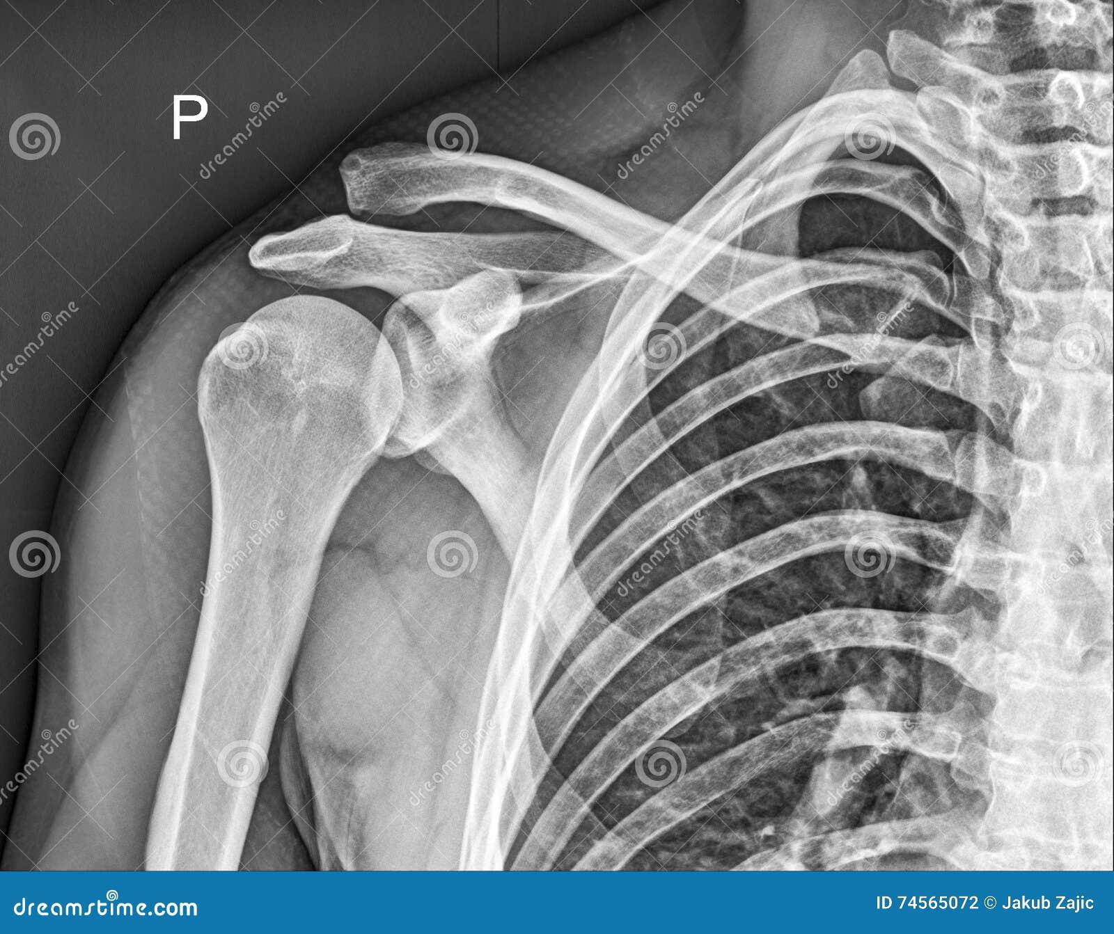 Clavicle Bone, Shoulder Medical Xray Stock Photo - Image of broken ...
